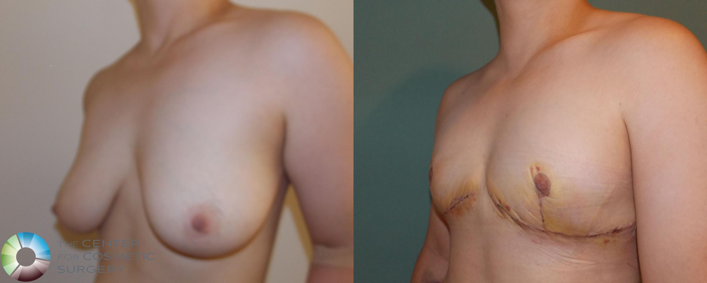 FTM Top Surgery/Chest Masculinization Case 700 Before & After View #2 | Golden, CO | The Center for Cosmetic Surgery