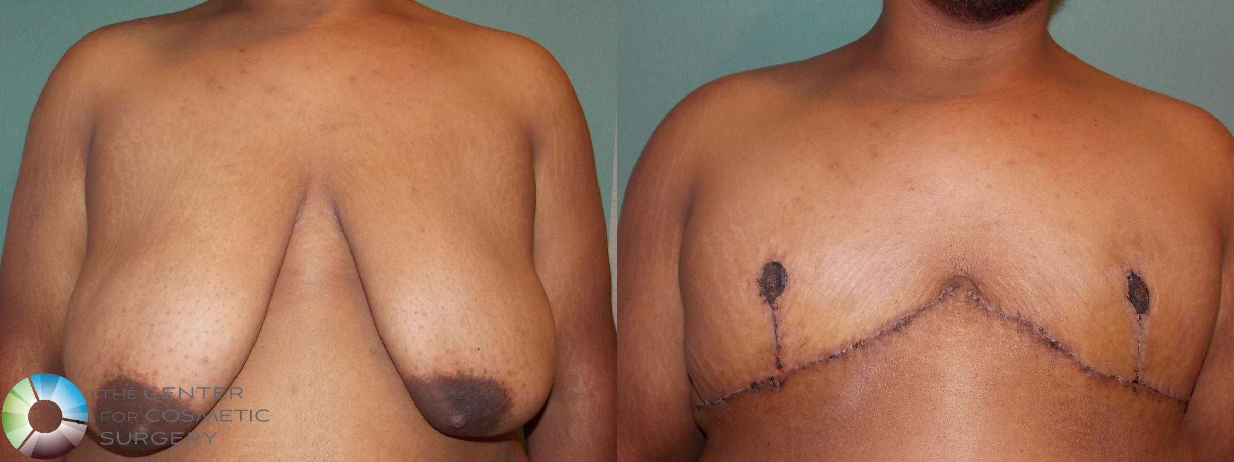 Best Denver Nipple-attached/Inverted-T Top Surgery