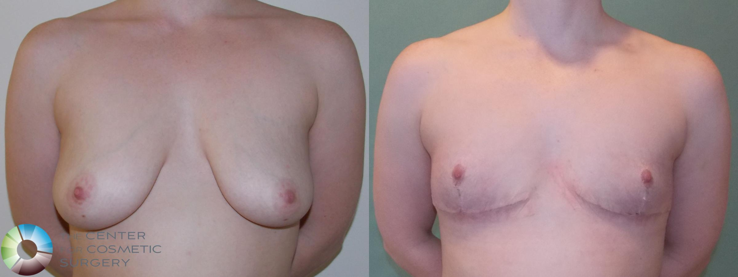 Best Denver Inverted-T/Nipple-Attached Top Surgery