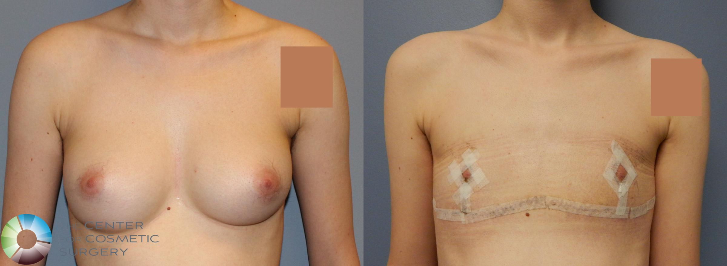 FTM Top Surgery/Chest Masculinization Case 857 Before & After View #1 | Golden, CO | The Center for Cosmetic Surgery