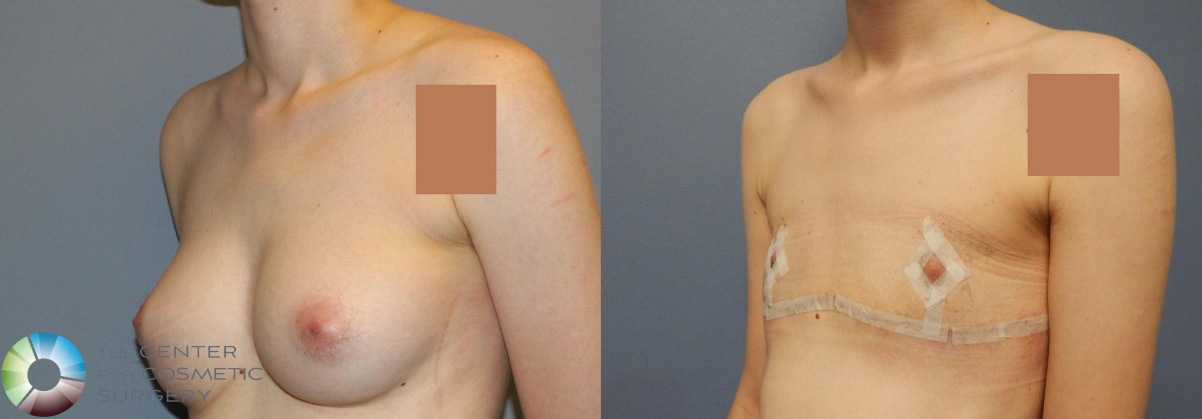 FTM Top Surgery/Chest Masculinization Case 857 Before & After View #2 | Golden, CO | The Center for Cosmetic Surgery