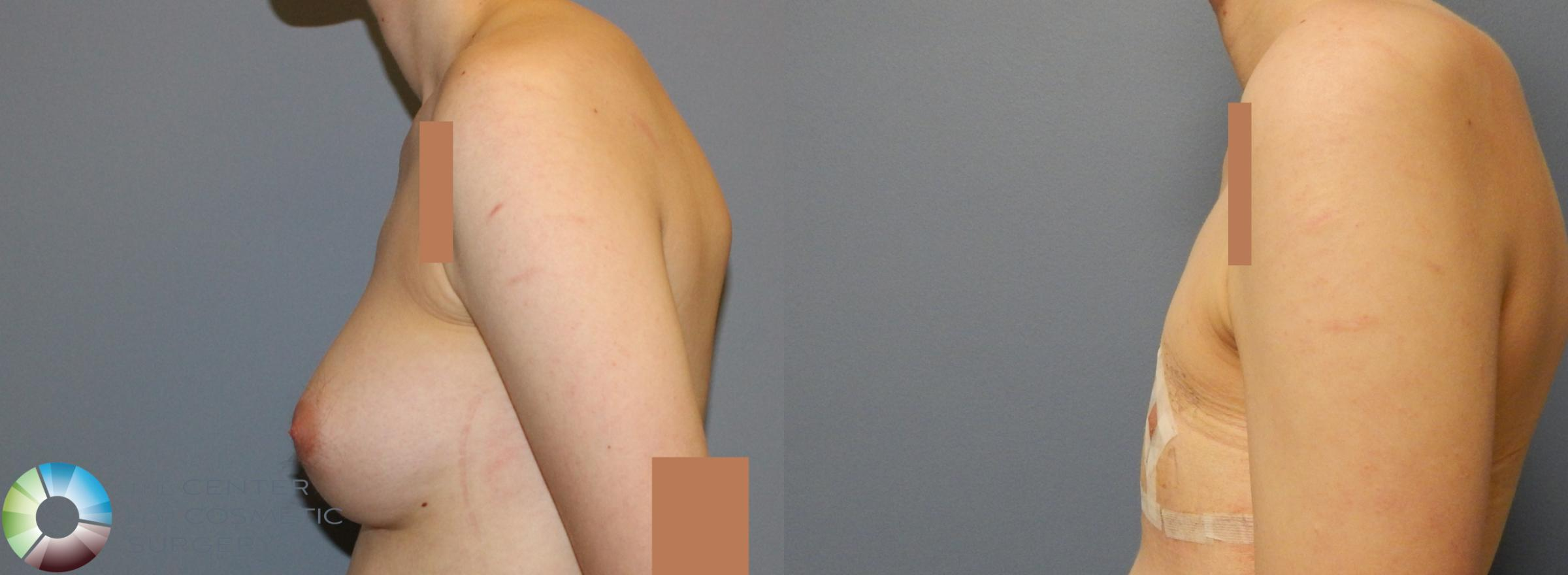 FTM Top Surgery/Chest Masculinization Case 857 Before & After View #3 | Golden, CO | The Center for Cosmetic Surgery
