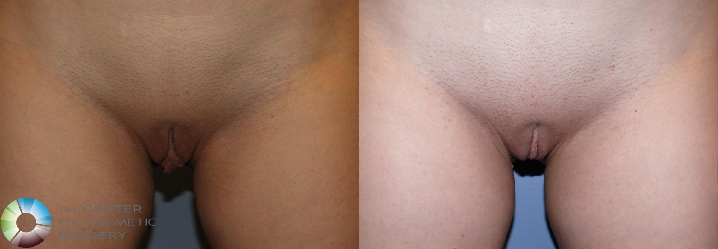 Labiaplasty Case 11223 Before & After Front | Golden, CO | The Center for Cosmetic Surgery