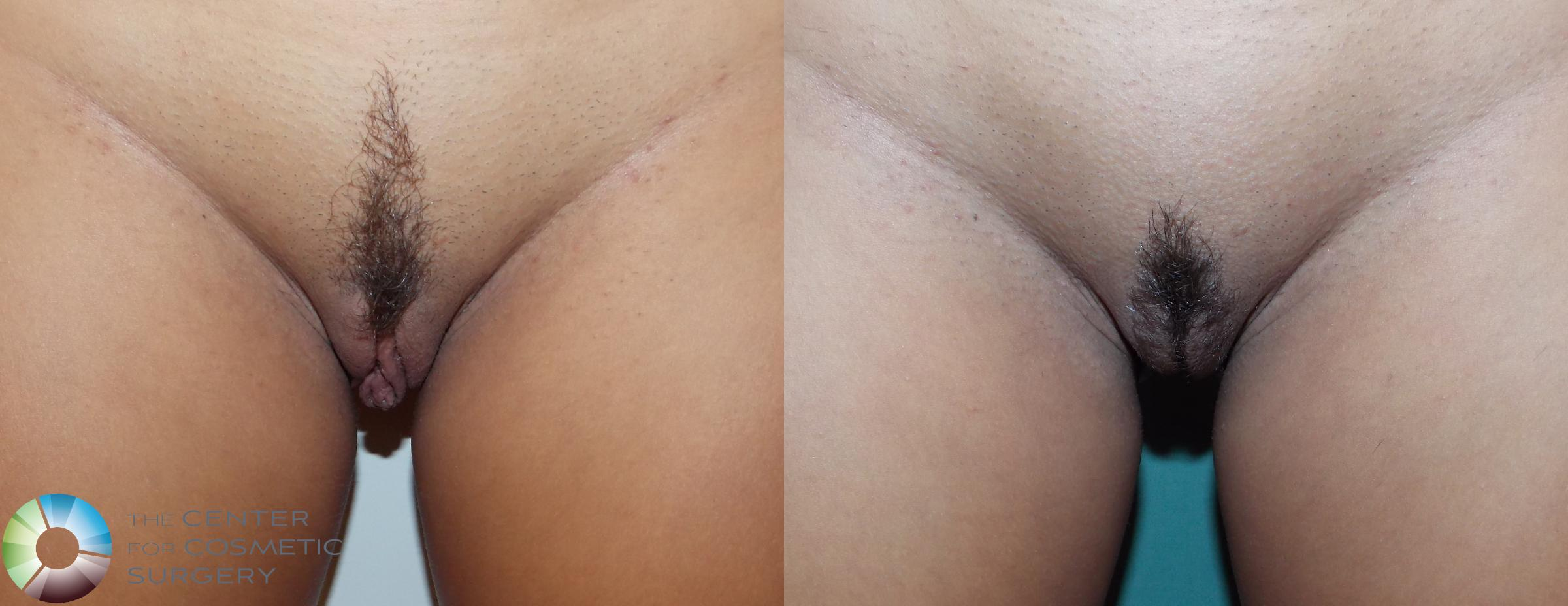 Labiaplasty Case 739 Before & After View #1 | Denver & Golden, CO | The Center for Cosmetic Surgery