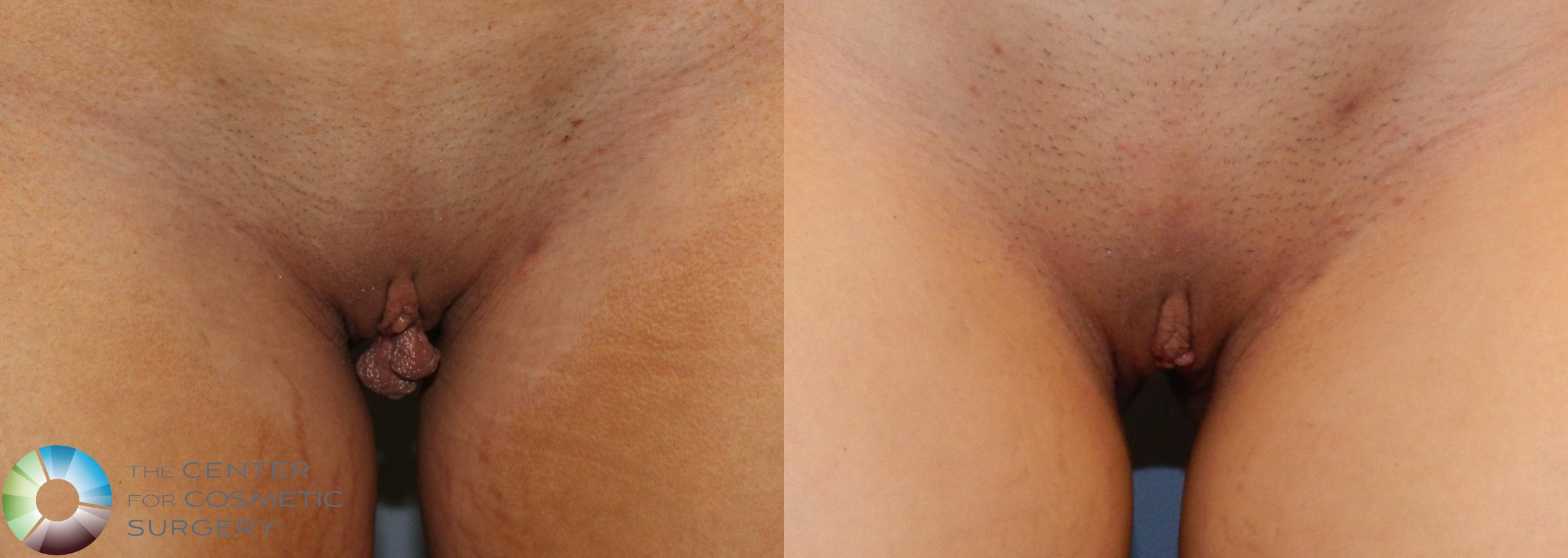 Labiaplasty Case 814 Before & After View #1 | Golden, CO | The Center for Cosmetic Surgery