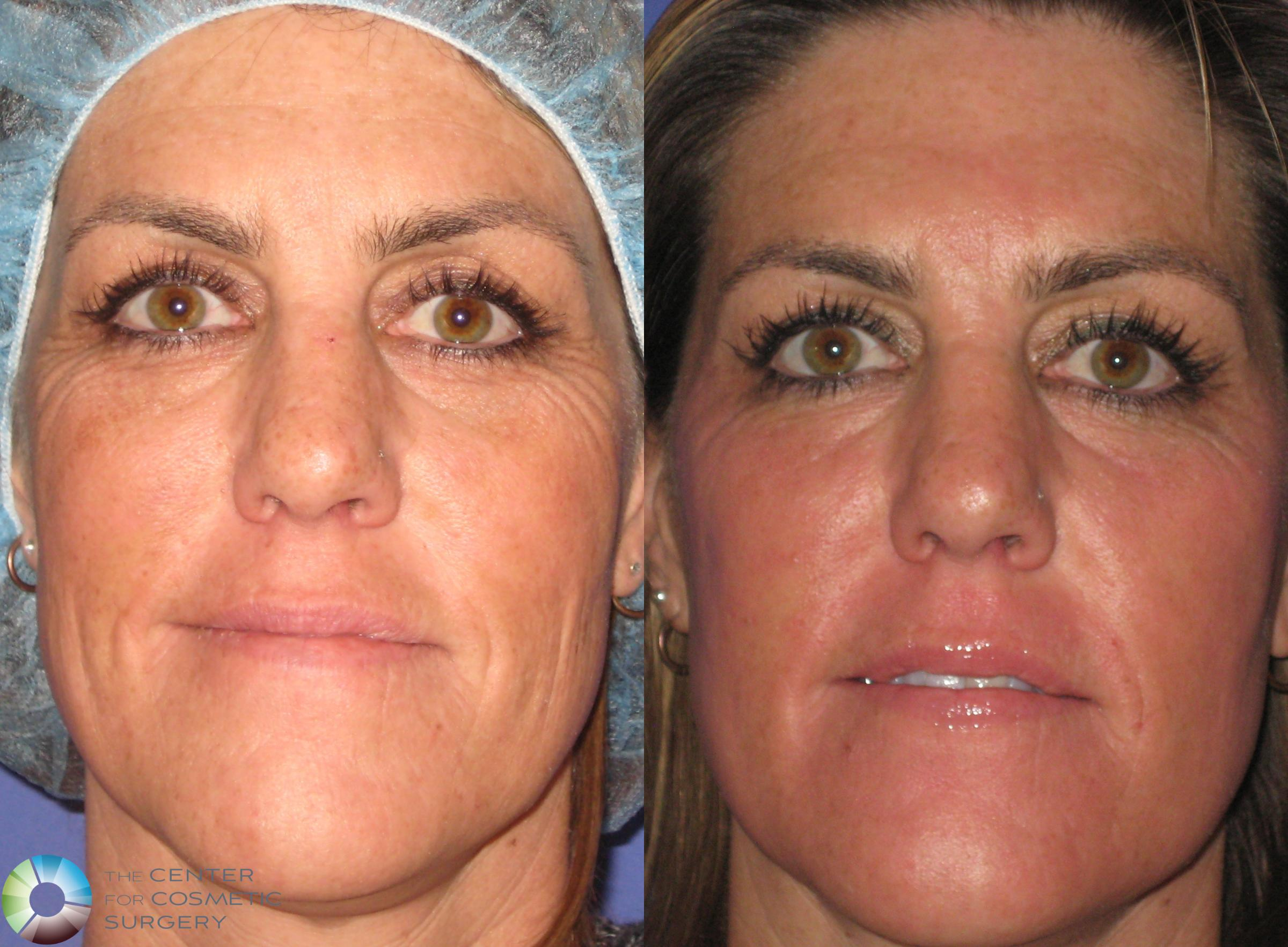 Laser Skin Resurfacing Case 365 Before & After View #1 | Golden, CO | The Center for Cosmetic Surgery