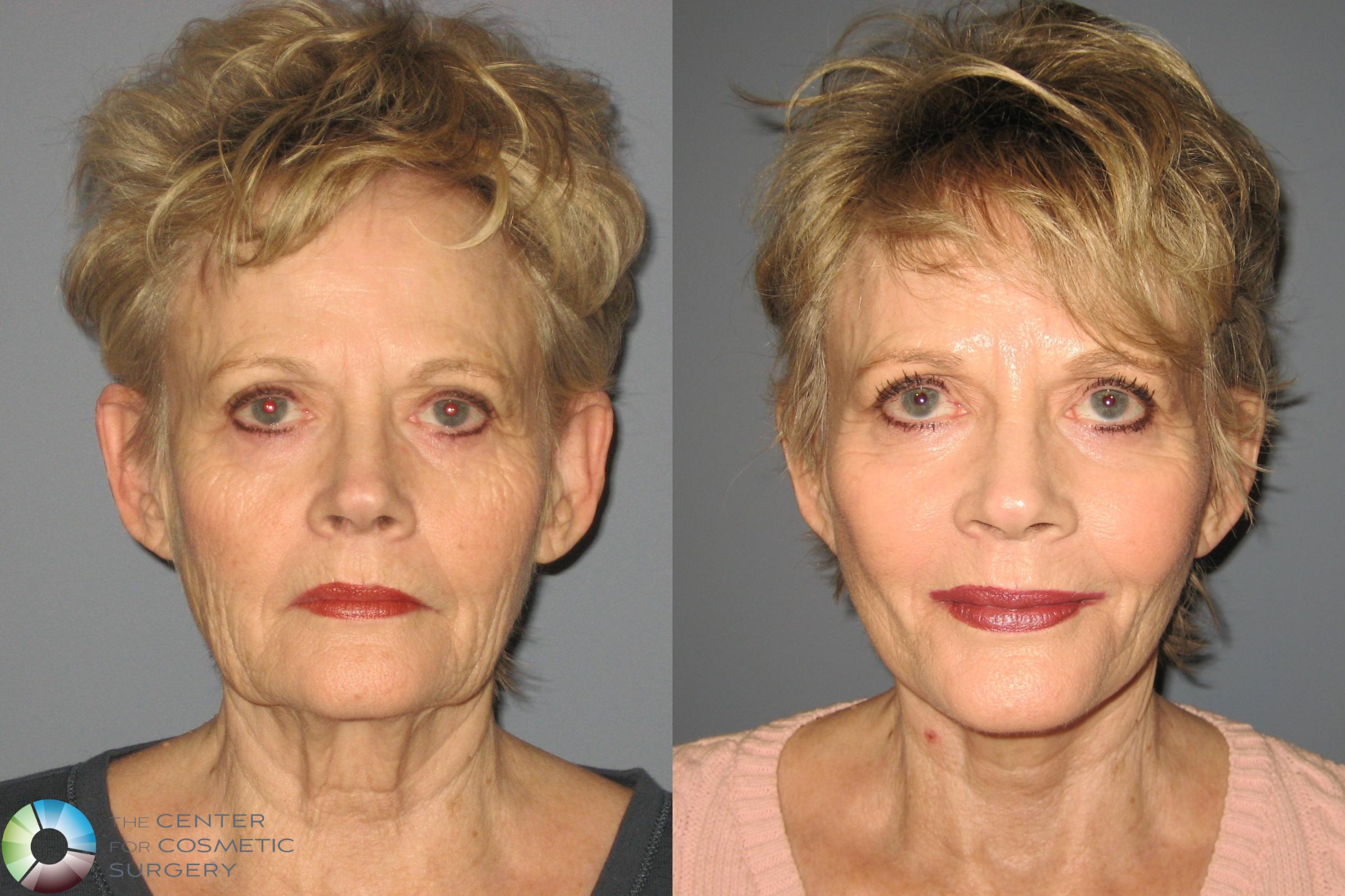 Laser Skin Resurfacing Case 453 Before & After View #1 | Golden, CO | The Center for Cosmetic Surgery