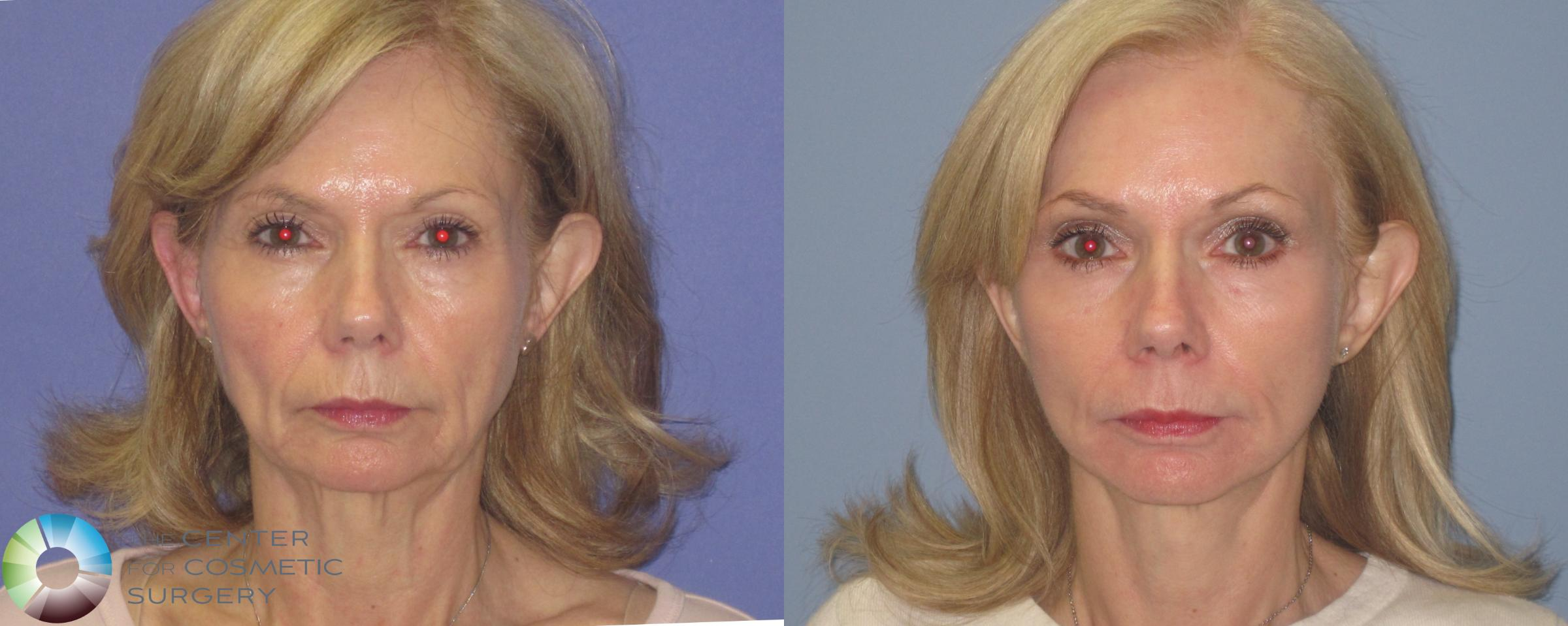Laser Skin Resurfacing Case 460 Before & After View #1 | Golden, CO | The Center for Cosmetic Surgery