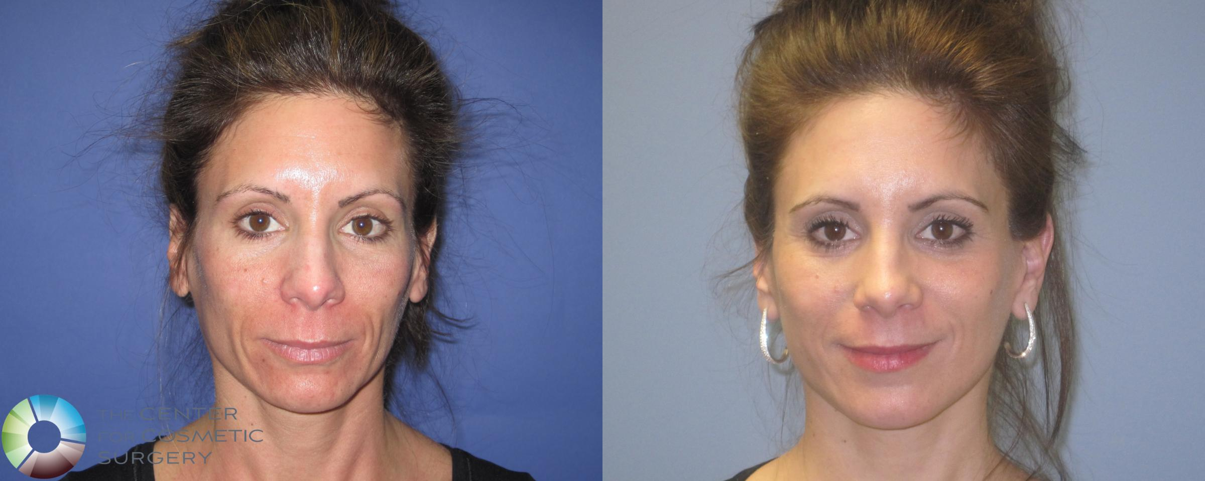Laser Skin Resurfacing Case 462 Before & After View #1 | Golden, CO | The Center for Cosmetic Surgery