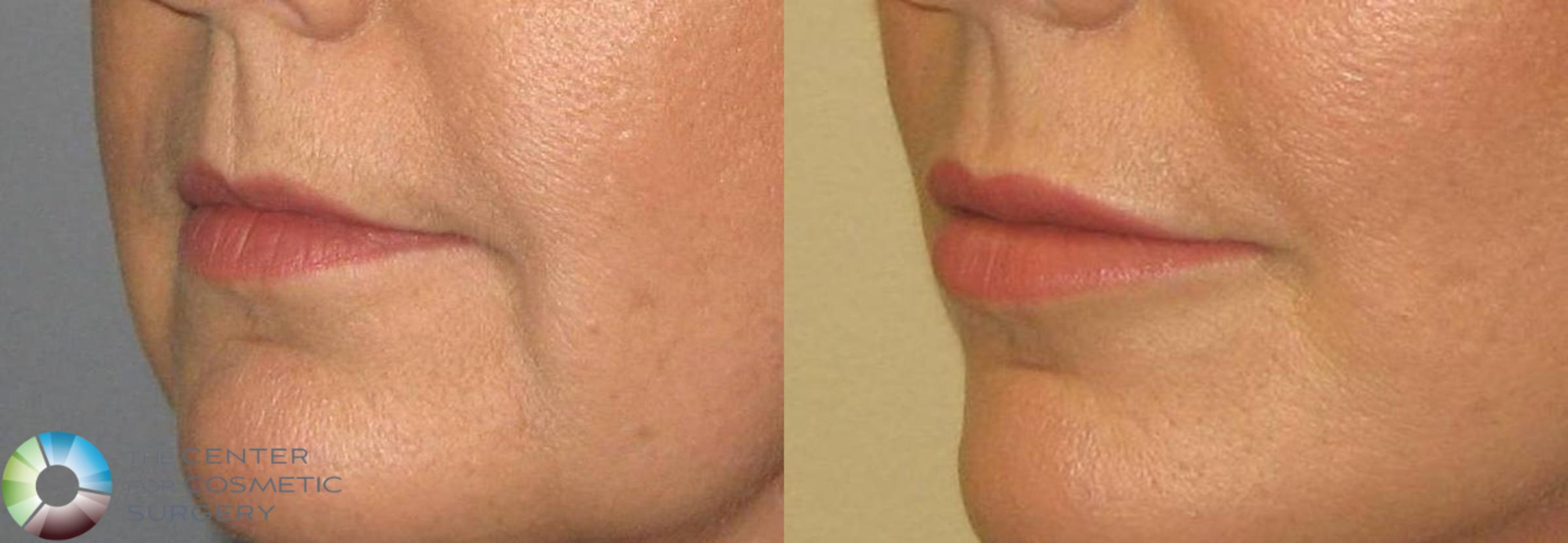 Lip Augmentation Case 362 Before & After View #1 | Golden, CO | The Center for Cosmetic Surgery