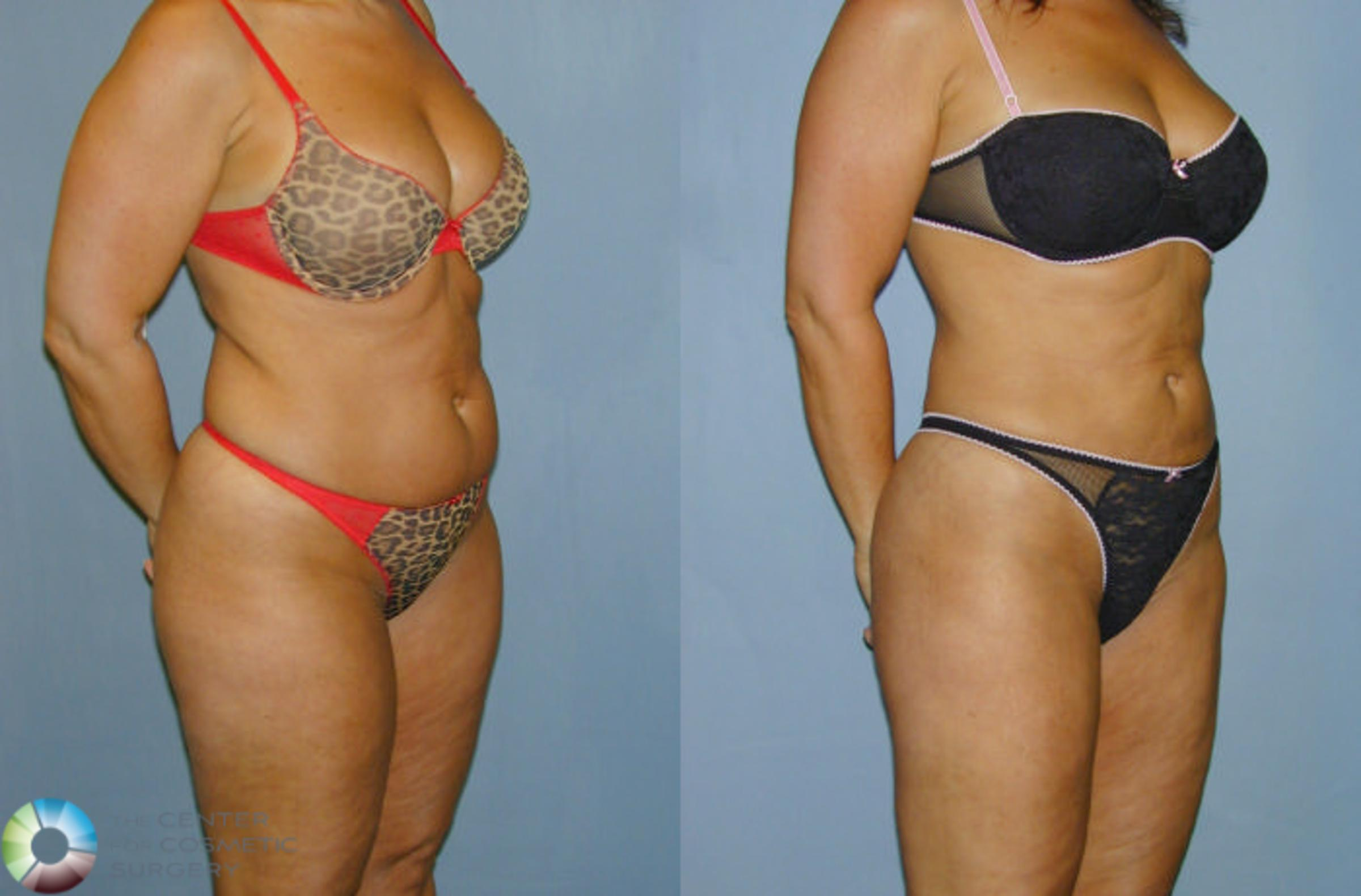 Liposuction In Denver Co The Center For Cosmetic Surgery
