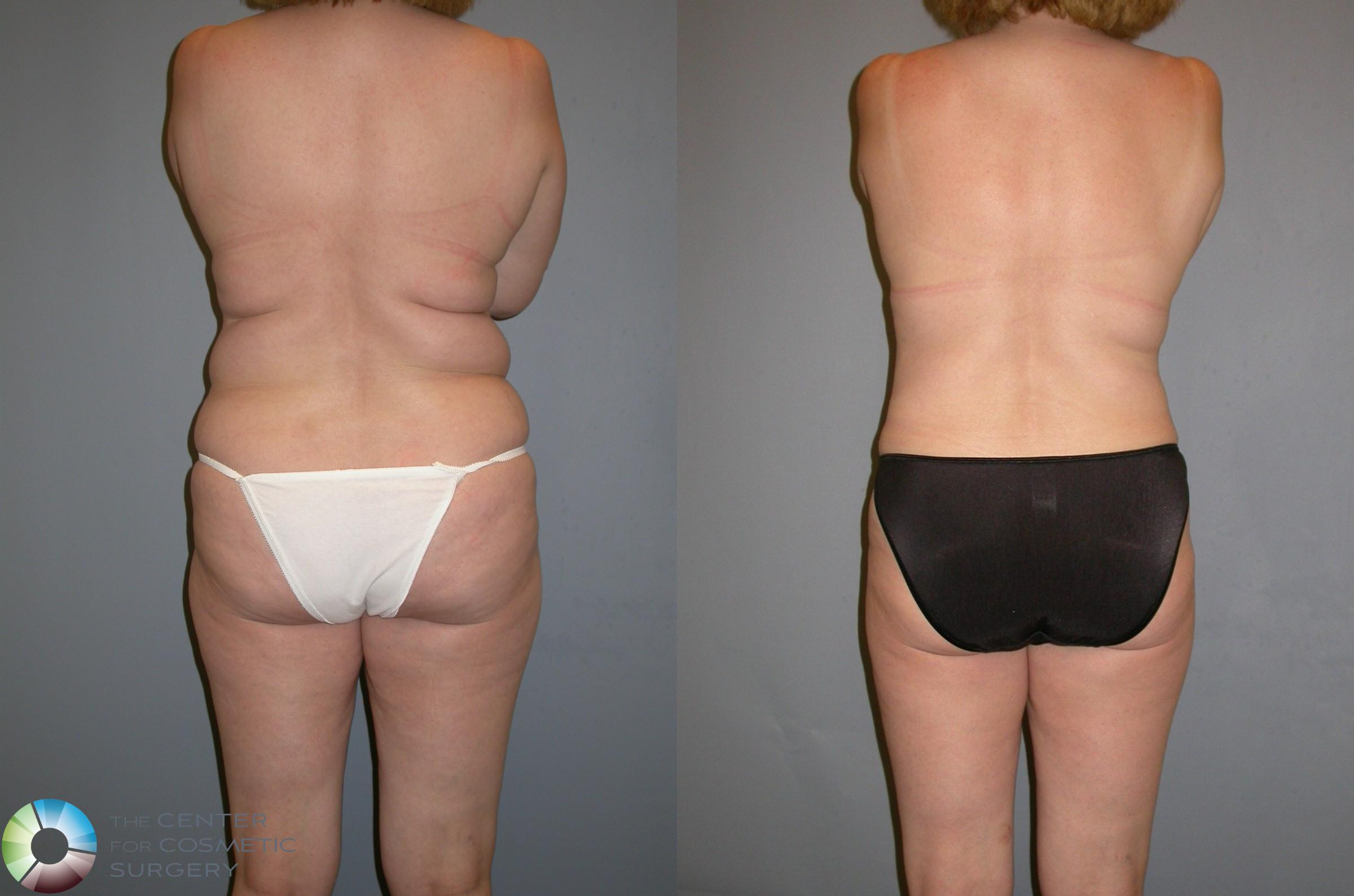 Liposuction Case 132 Before & After View #1 | Golden, CO | The Center for Cosmetic Surgery