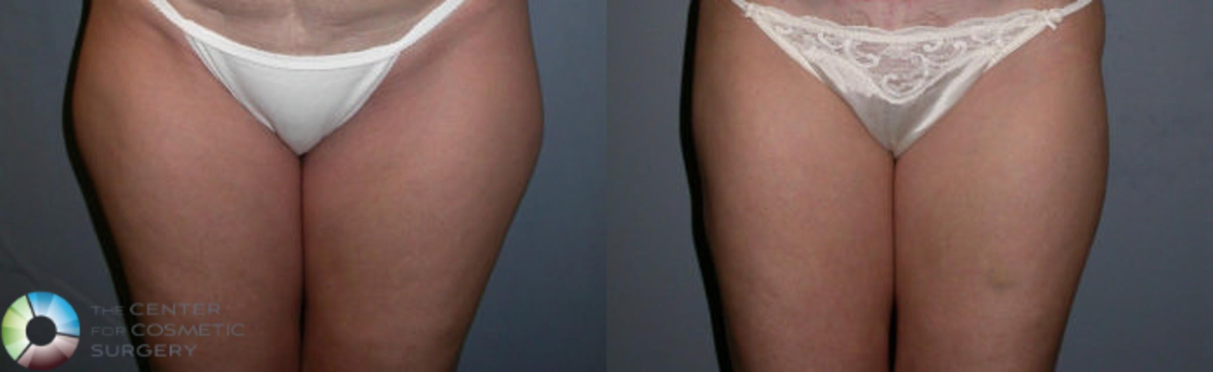 Liposuction Case 19 Before & After View #1 | Golden, CO | The Center for Cosmetic Surgery