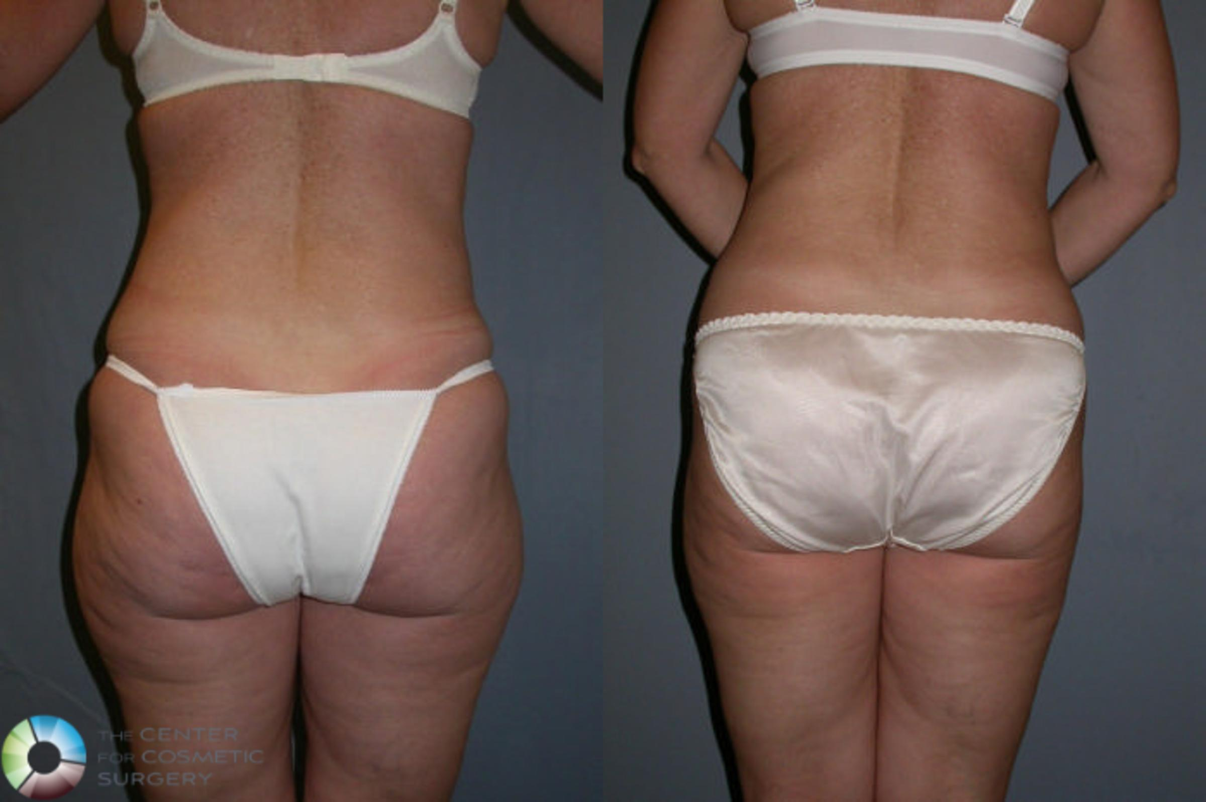 Liposuction Case 19 Before & After View #2 | Golden, CO | The Center for Cosmetic Surgery