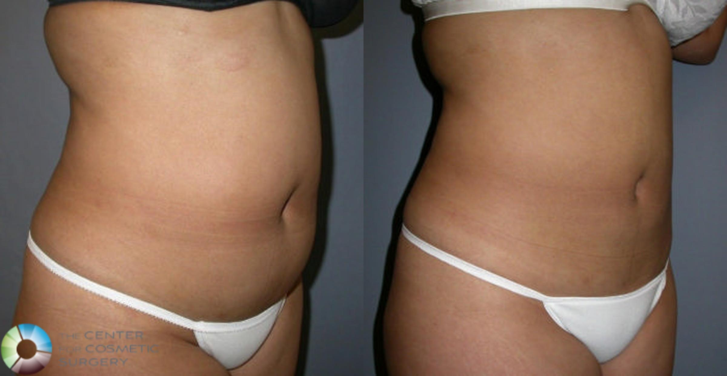 Liposuction Case 4 Before & After View #1 | Golden, CO | The Center for Cosmetic Surgery
