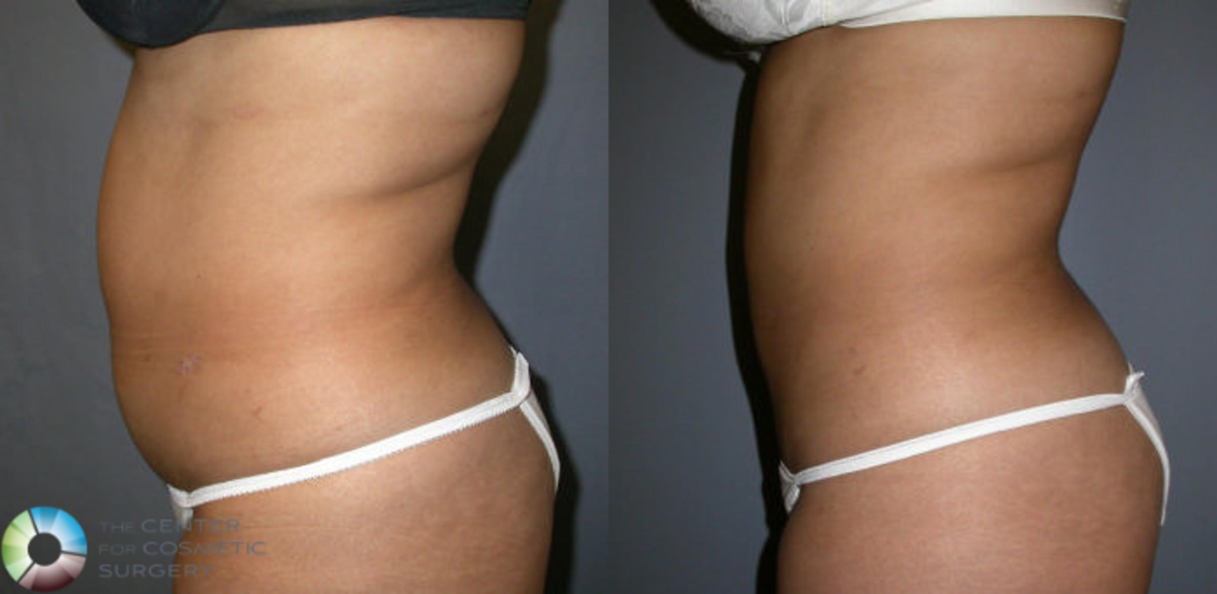 Liposuction Case 4 Before & After View #2 | Golden, CO | The Center for Cosmetic Surgery
