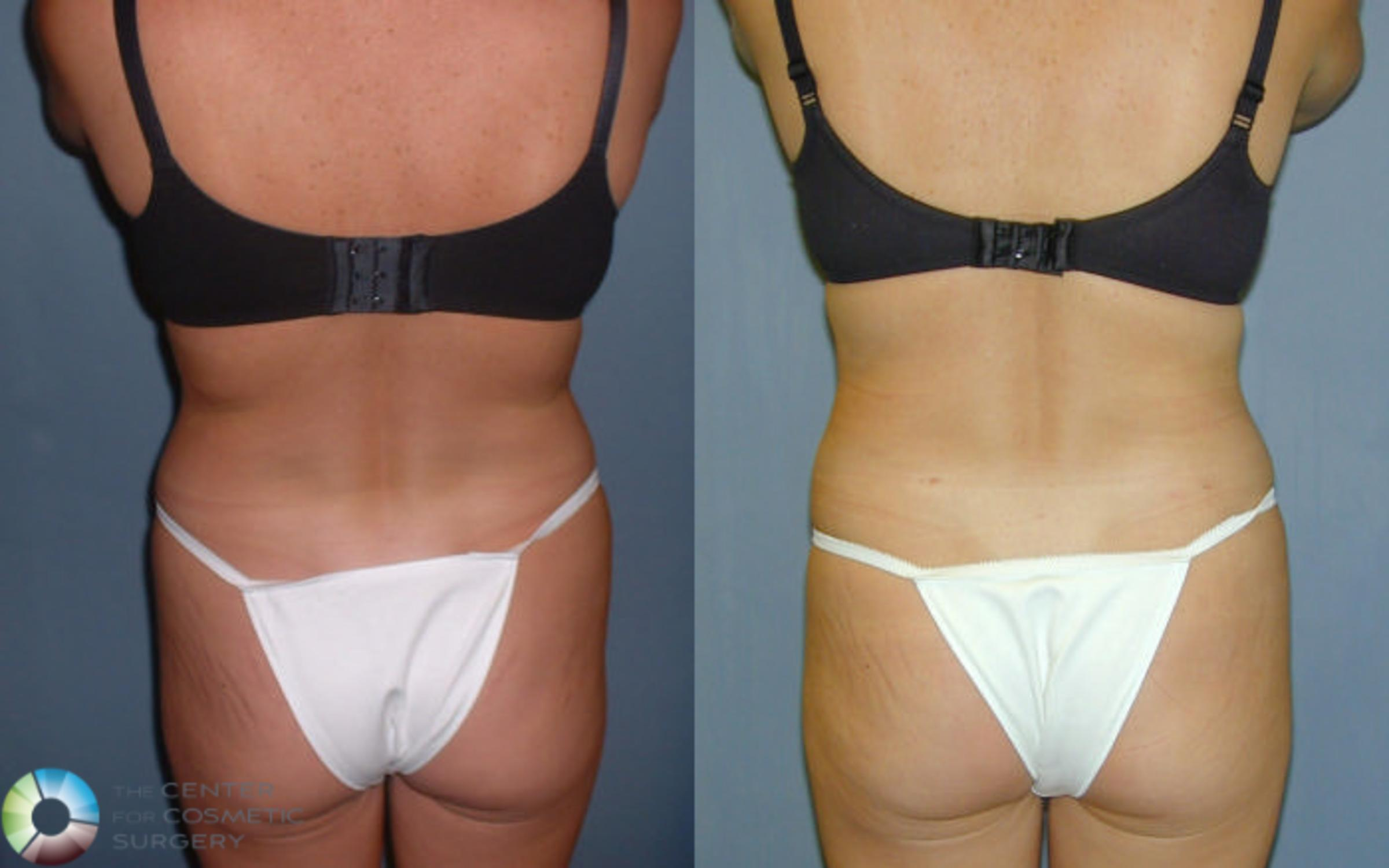 Liposuction Case 41 Before & After View #1 | Golden, CO | The Center for Cosmetic Surgery