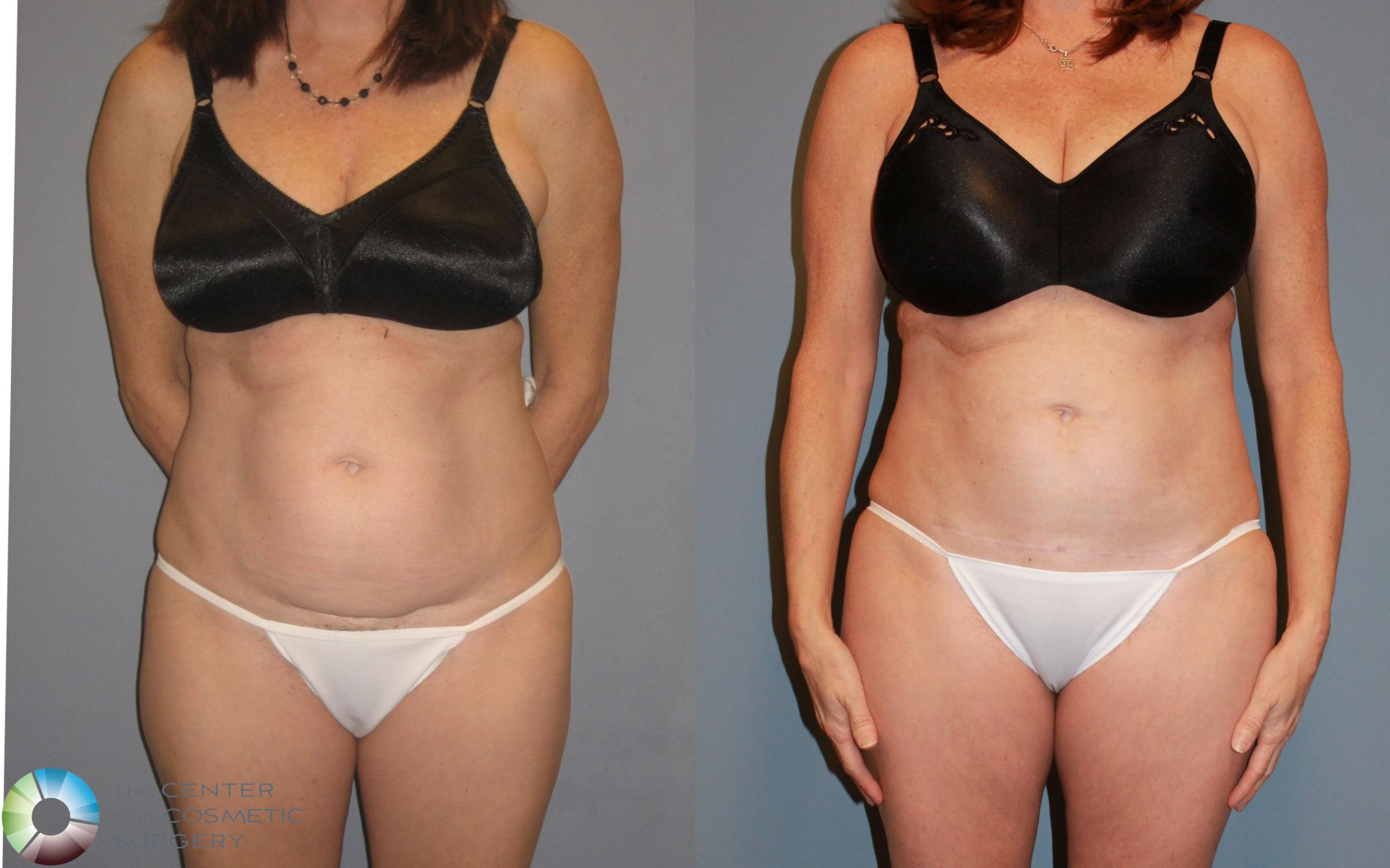 Liposuction Case 455 Before & After View #1 | Golden, CO | The Center for Cosmetic Surgery