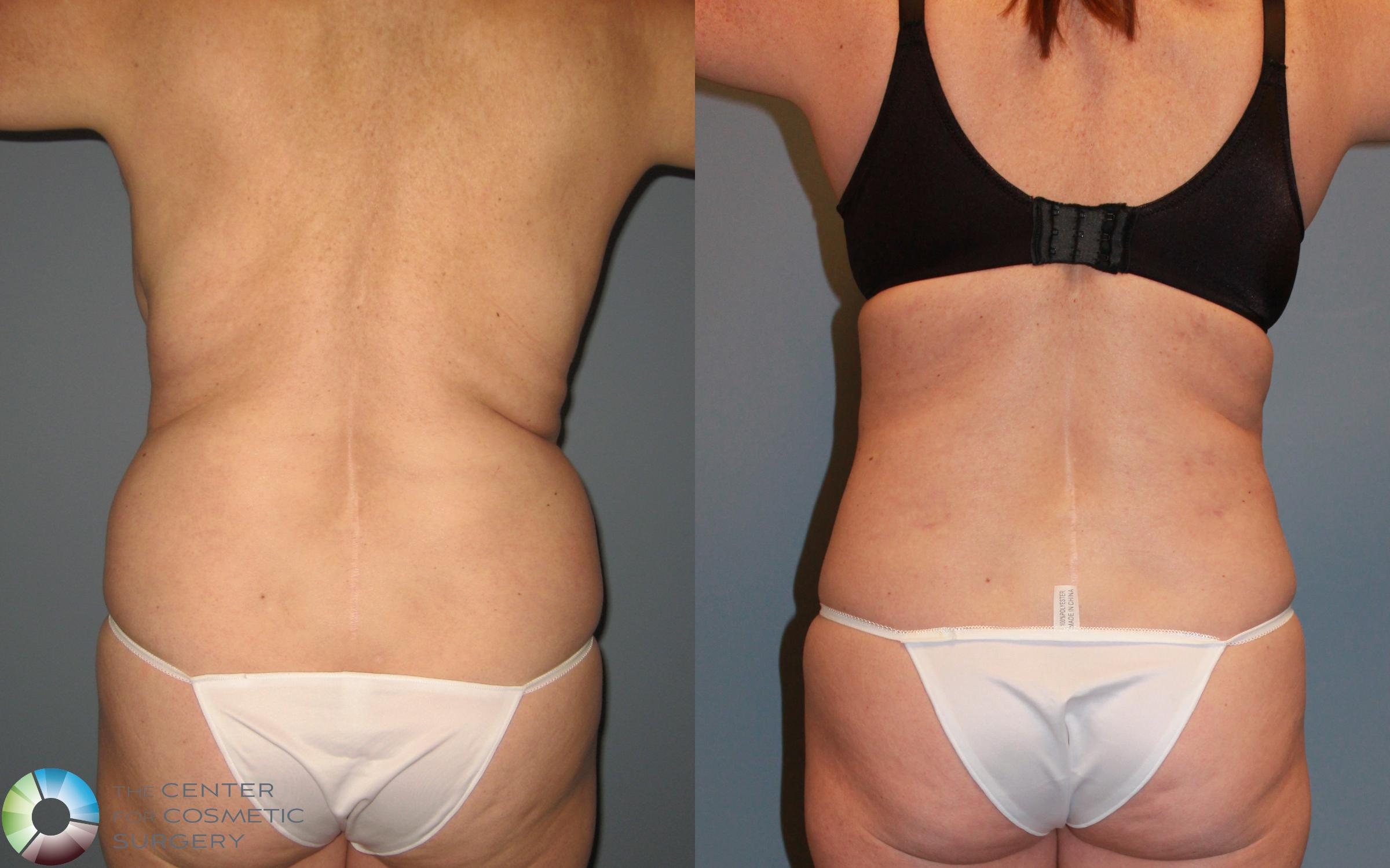 Liposuction Case 455 Before & After View #2 | Golden, CO | The Center for Cosmetic Surgery