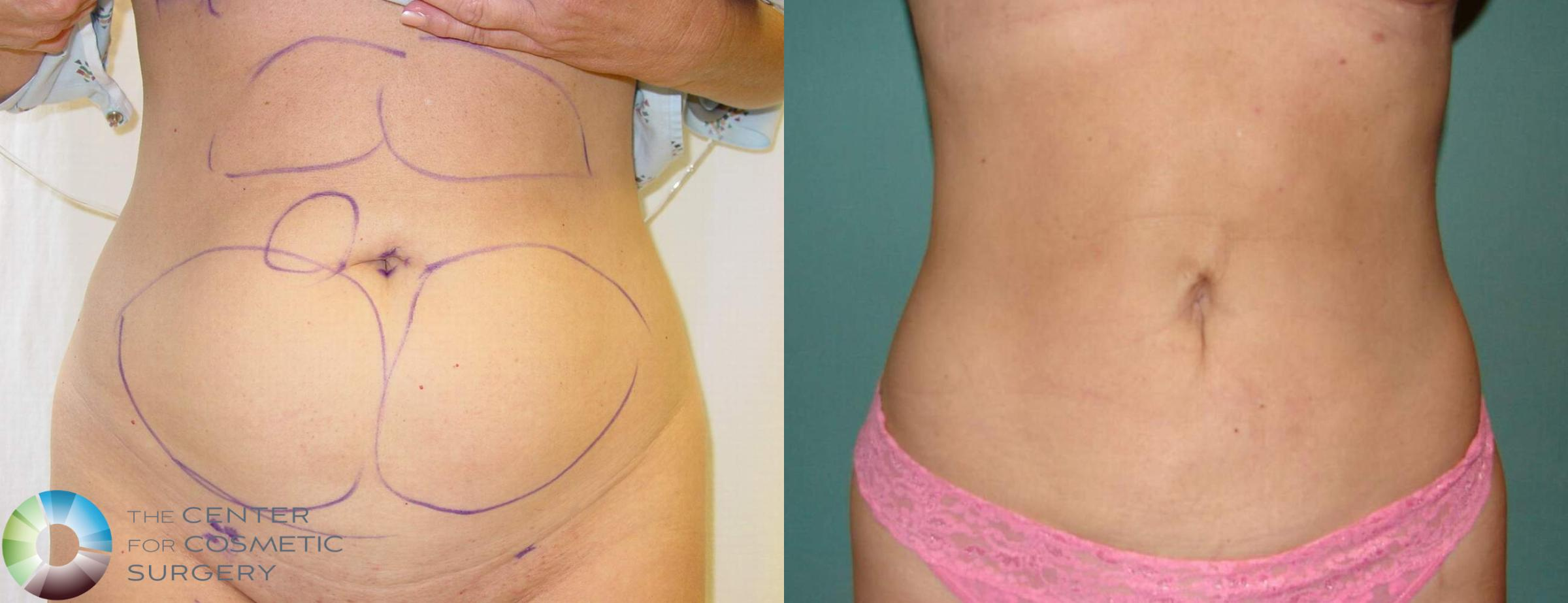 Liposuction Case 601 Before & After View #1 | Golden, CO | The Center for Cosmetic Surgery