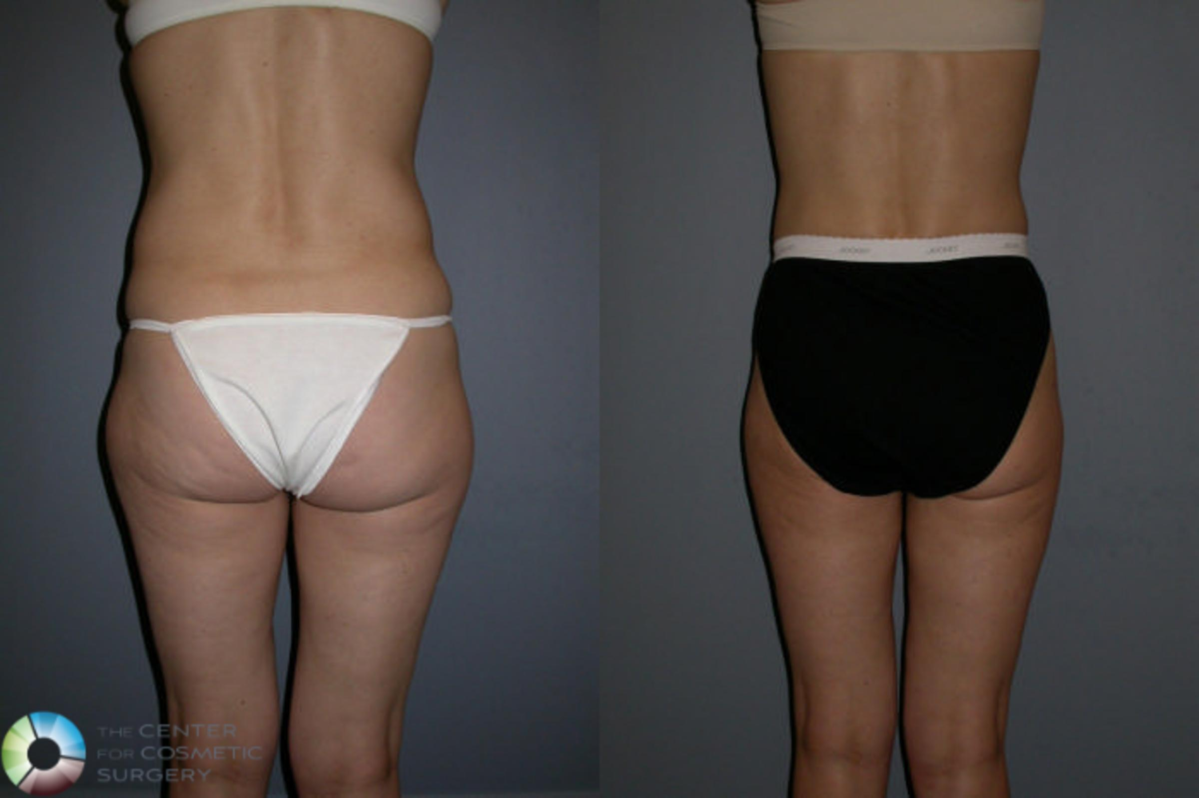 Liposuction Case 68 Before & After View #1 | Golden, CO | The Center for Cosmetic Surgery