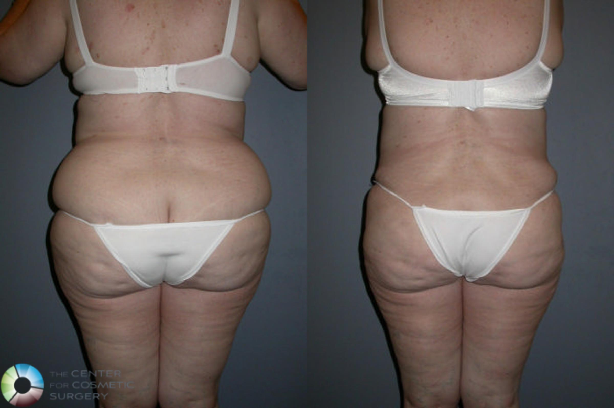 Power-assisted Liposuction Case 72 Before & After View #1 | Golden, CO | The Center for Cosmetic Surgery