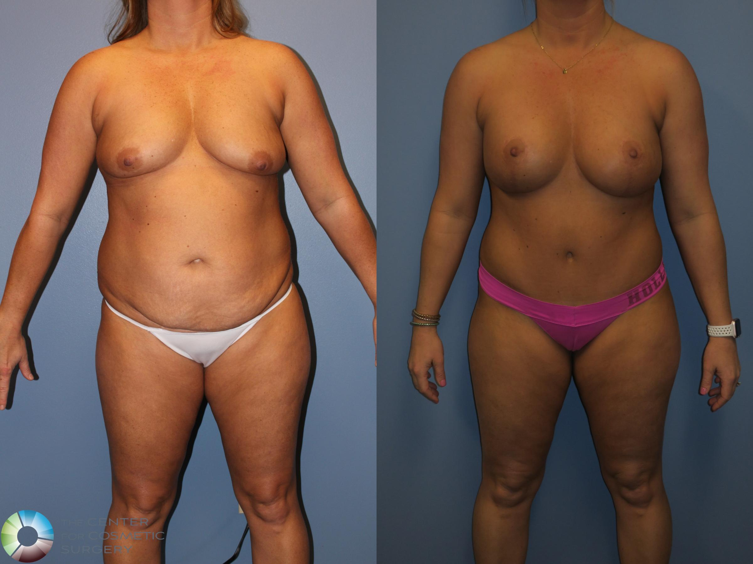 Liposuction Case 817 Before & After View #1 | Golden, CO | The Center for Cosmetic Surgery