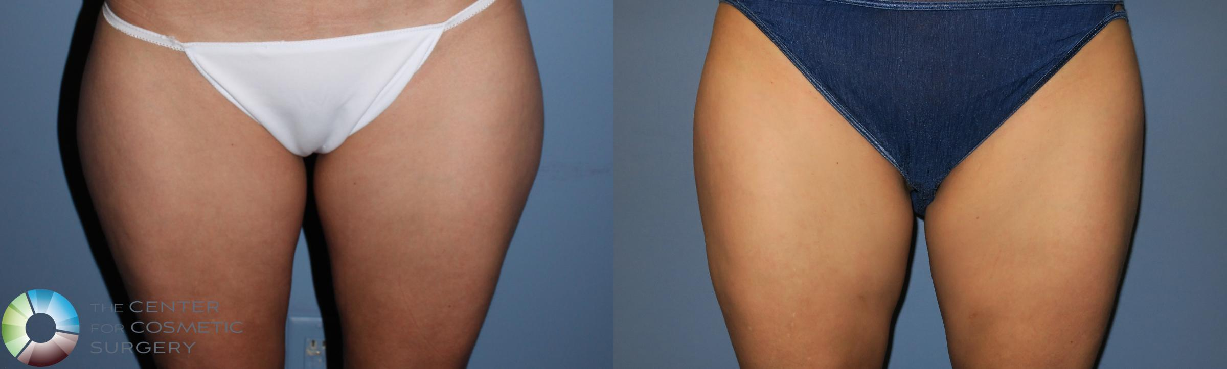 Liposuction Case 819 Before & After View #1 | Golden, CO | The Center for Cosmetic Surgery