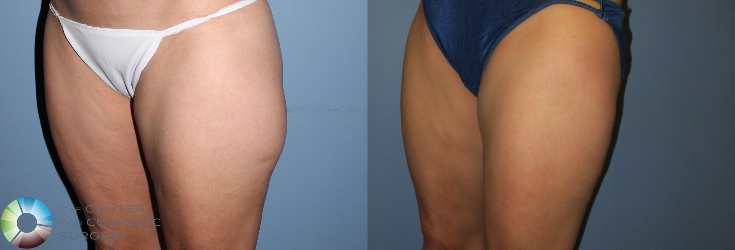Liposuction Case 819 Before & After View #2 | Golden, CO | The Center for Cosmetic Surgery
