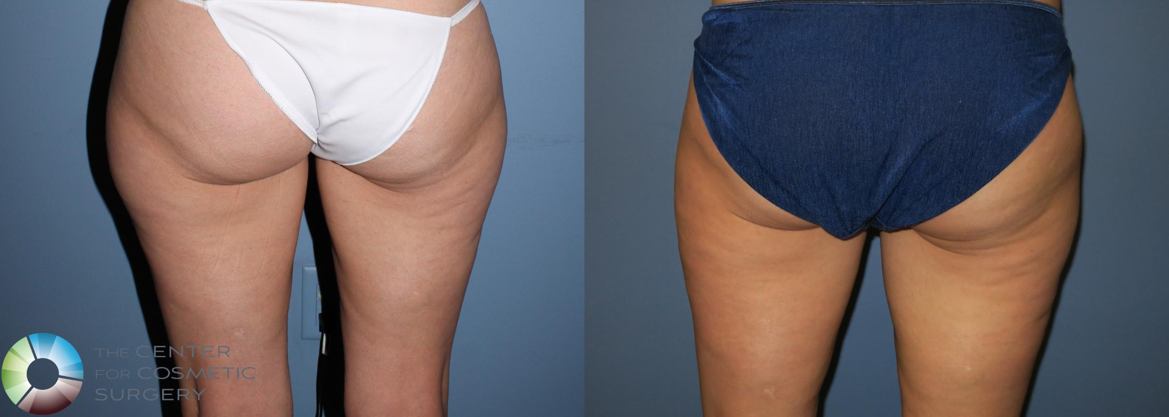 Liposuction Case 819 Before & After View #3 | Golden, CO | The Center for Cosmetic Surgery
