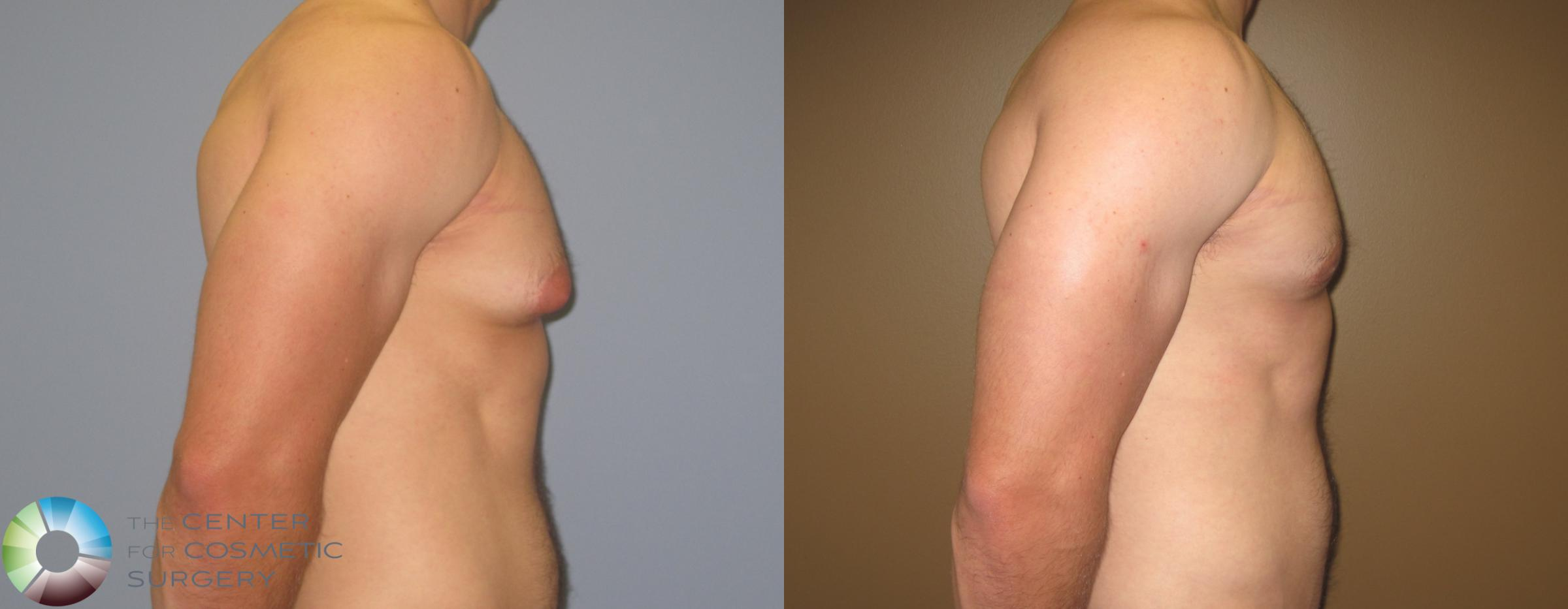 Male Breast Reduction (Gynecomastia) Case 451 Before & After View #1 | Golden, CO | The Center for Cosmetic Surgery