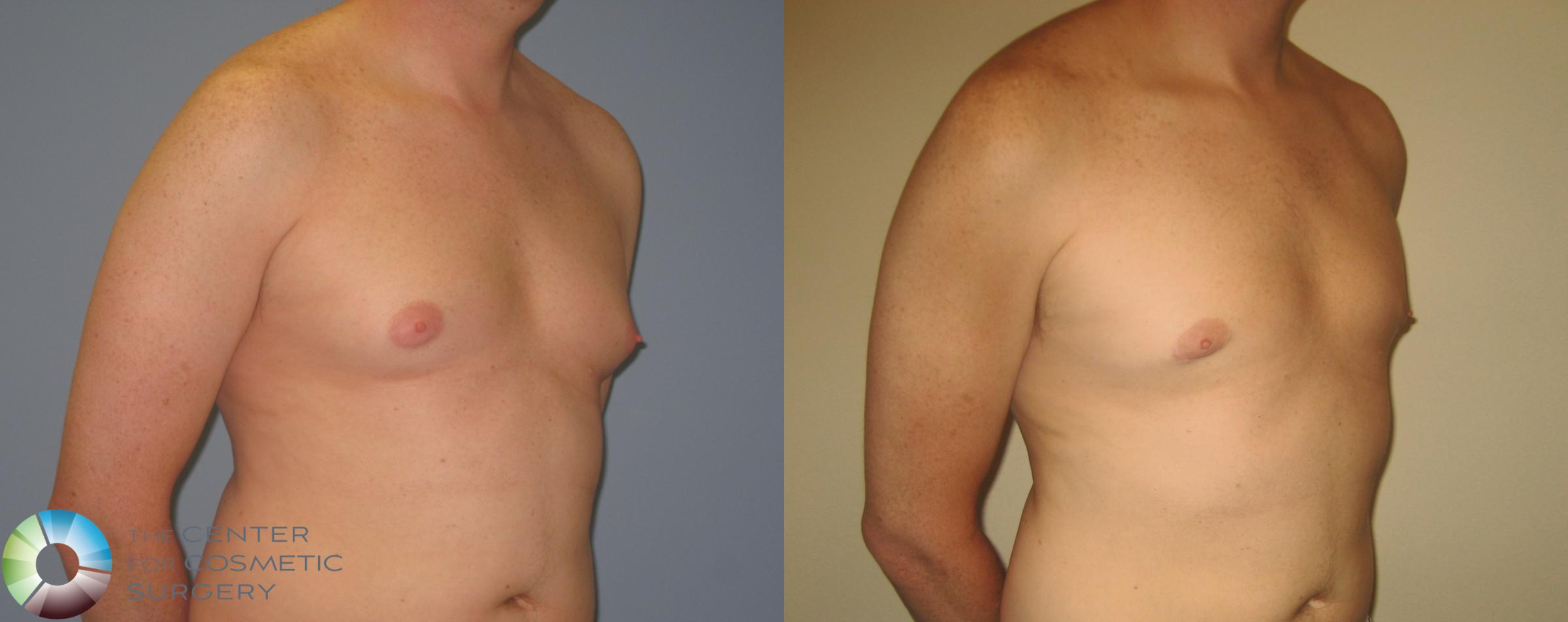 Male Breast Reduction (Gynecomastia) Case 452 Before & After View #1 | Golden, CO | The Center for Cosmetic Surgery