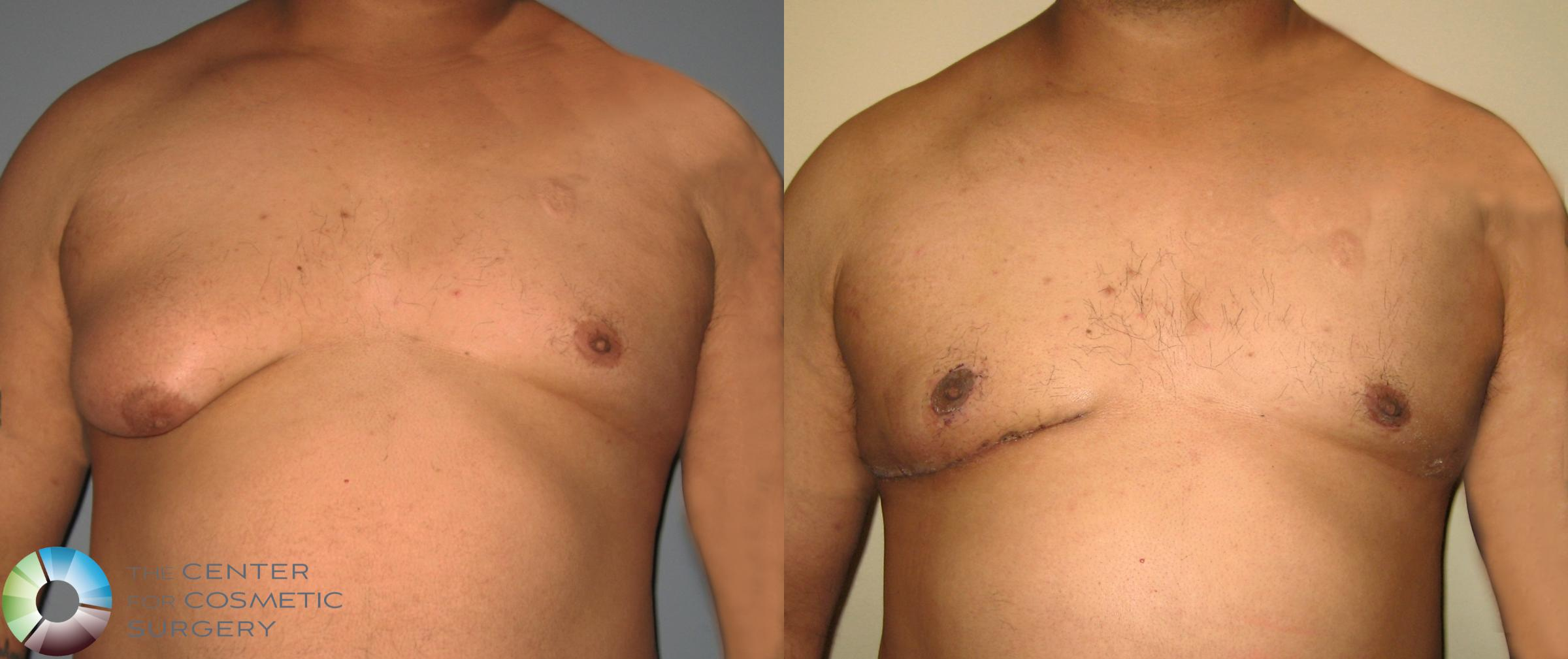 Male Breast Reduction Gynecomastia Surgery In Denver The