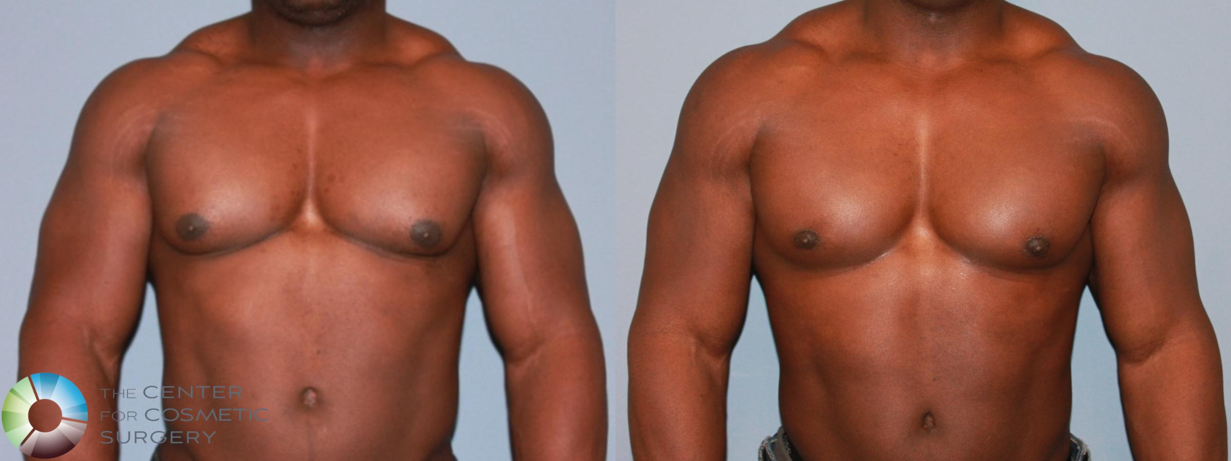 Male Breast Reduction (Gynecomastia) Case 477 Before & After View #1 | Golden, CO | The Center for Cosmetic Surgery