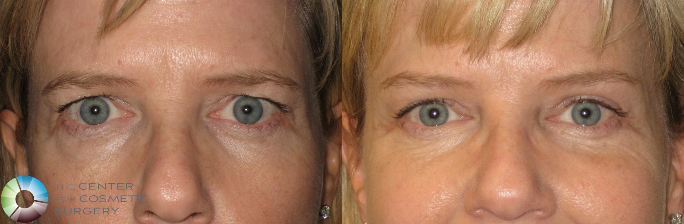 Mini Brow Lift Case 154 Before & After View #1 | Golden, CO | The Center for Cosmetic Surgery