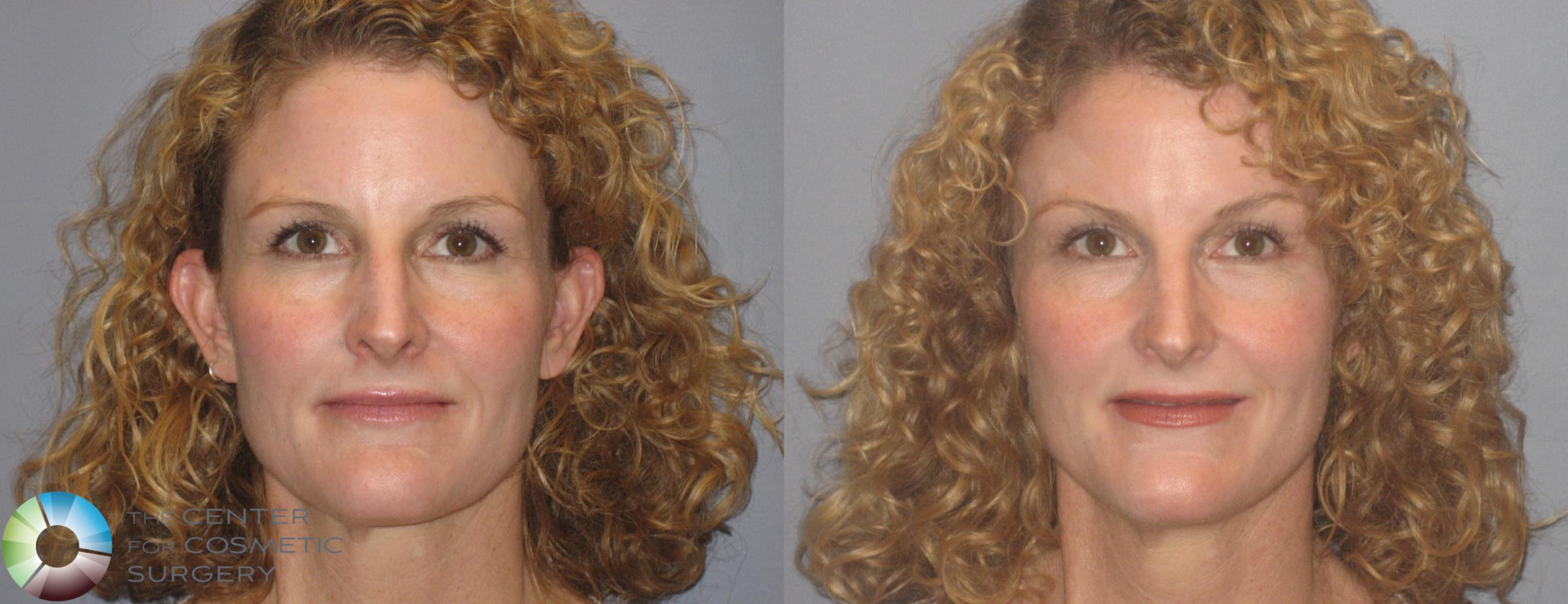 Mini Brow Lift Case 251 Before & After View #1 | Golden, CO | The Center for Cosmetic Surgery