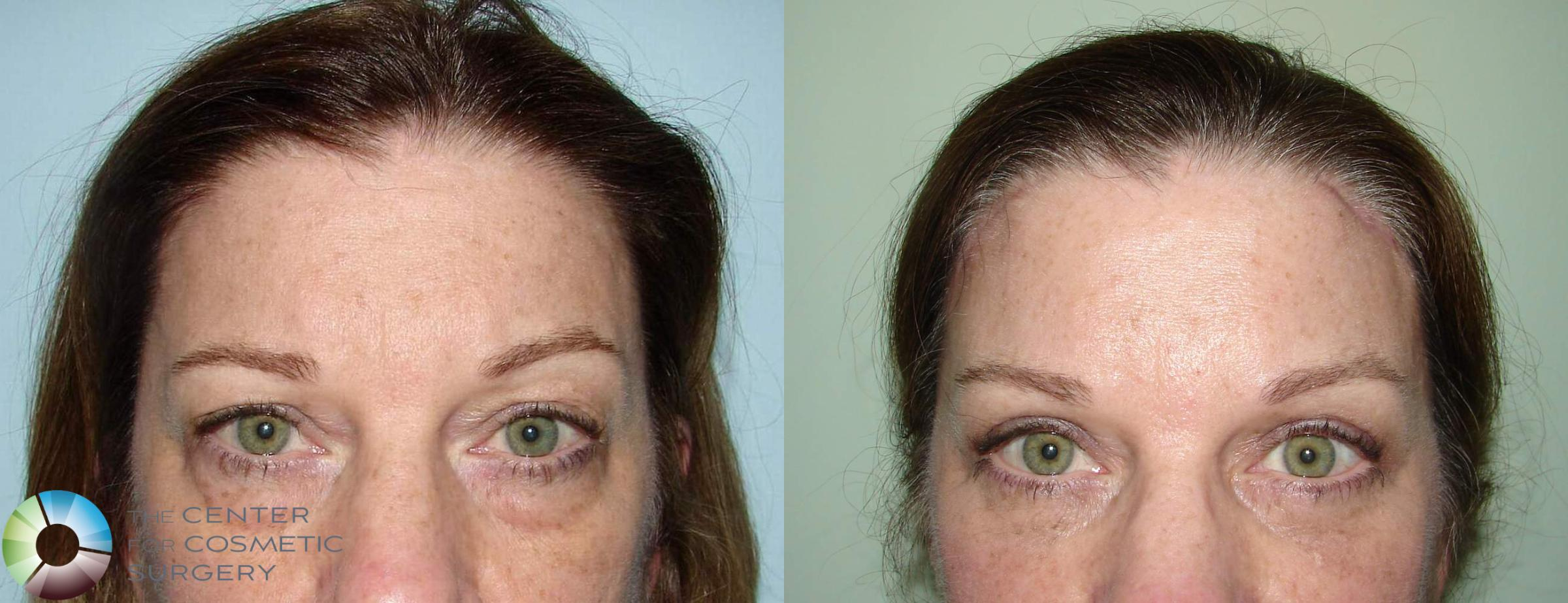 Mini Brow Lift In Denver The Center For Cosmetic Surgery