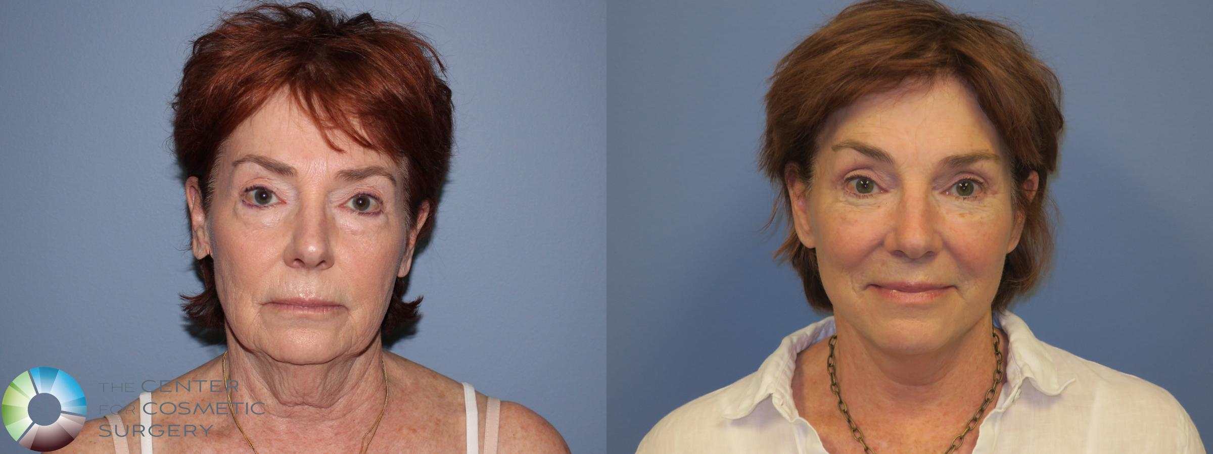 Mini Facelift Case 11449 Before & After Front | Denver & Golden, CO | The Center for Cosmetic Surgery