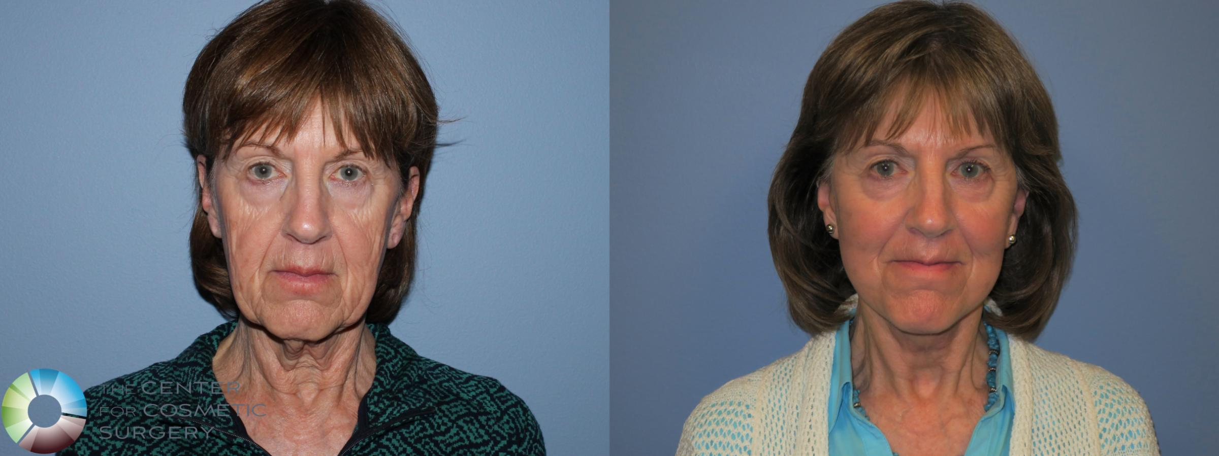 Mini Facelift Case 11452 Before & After Front | Golden, CO | The Center for Cosmetic Surgery