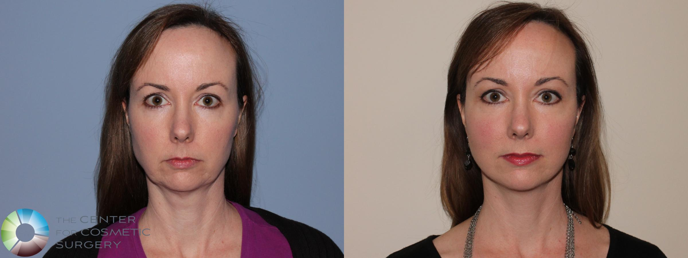 Neck Lift Case 11462 Before & After Front | Golden, CO | The Center for Cosmetic Surgery