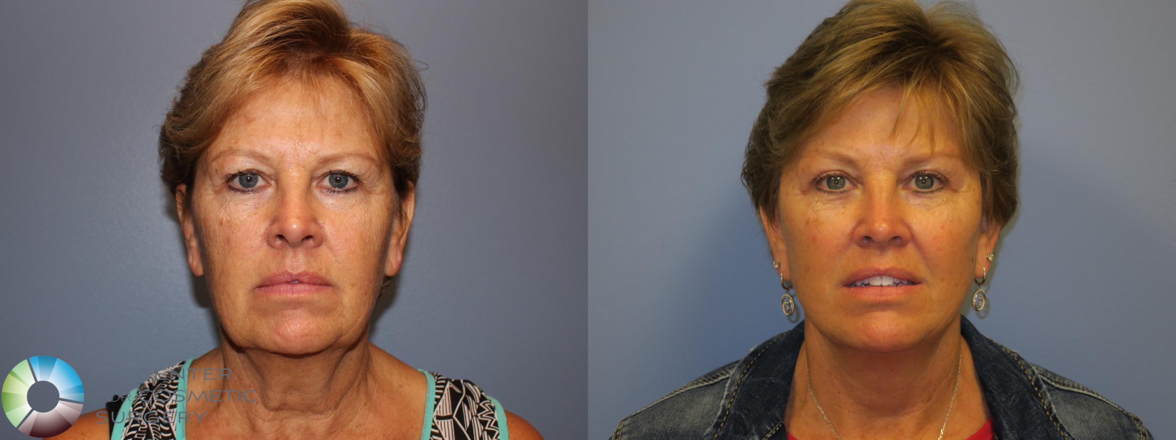 Neck Lift Case 11485 Before & After Front | Golden, CO | The Center for Cosmetic Surgery