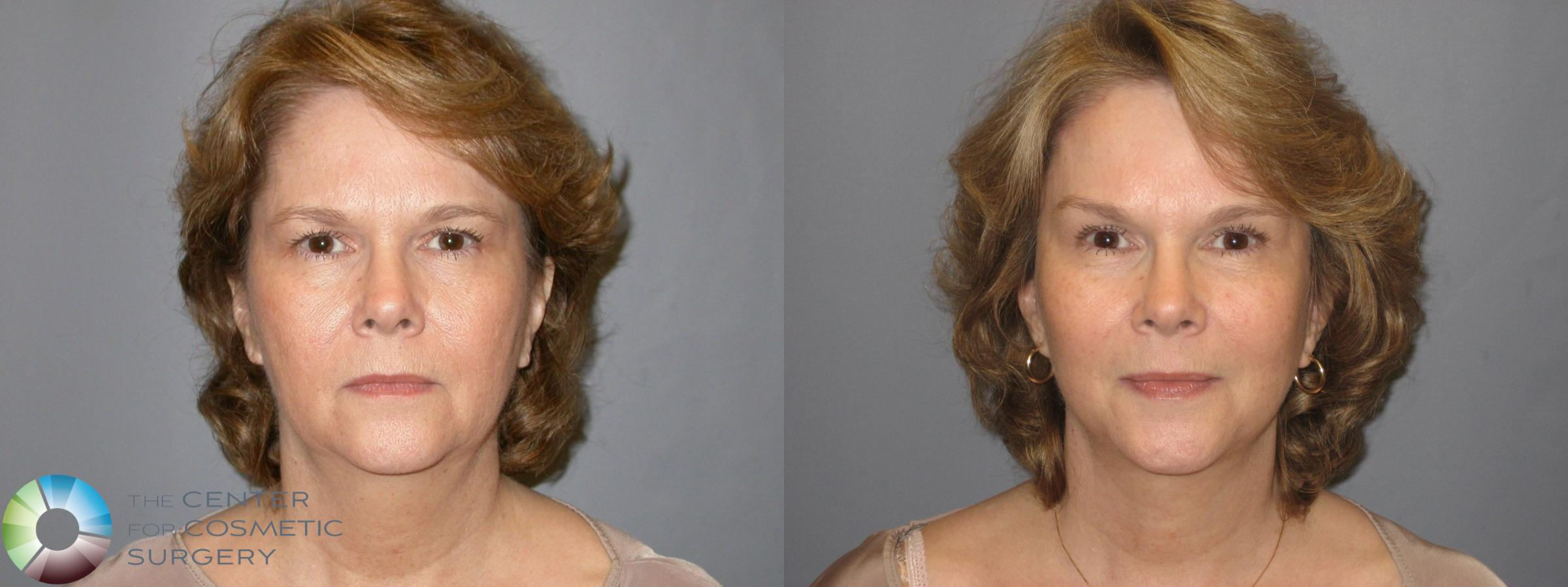 Mini Brow Lift Case 116 Before & After View #1 | Golden, CO | The Center for Cosmetic Surgery