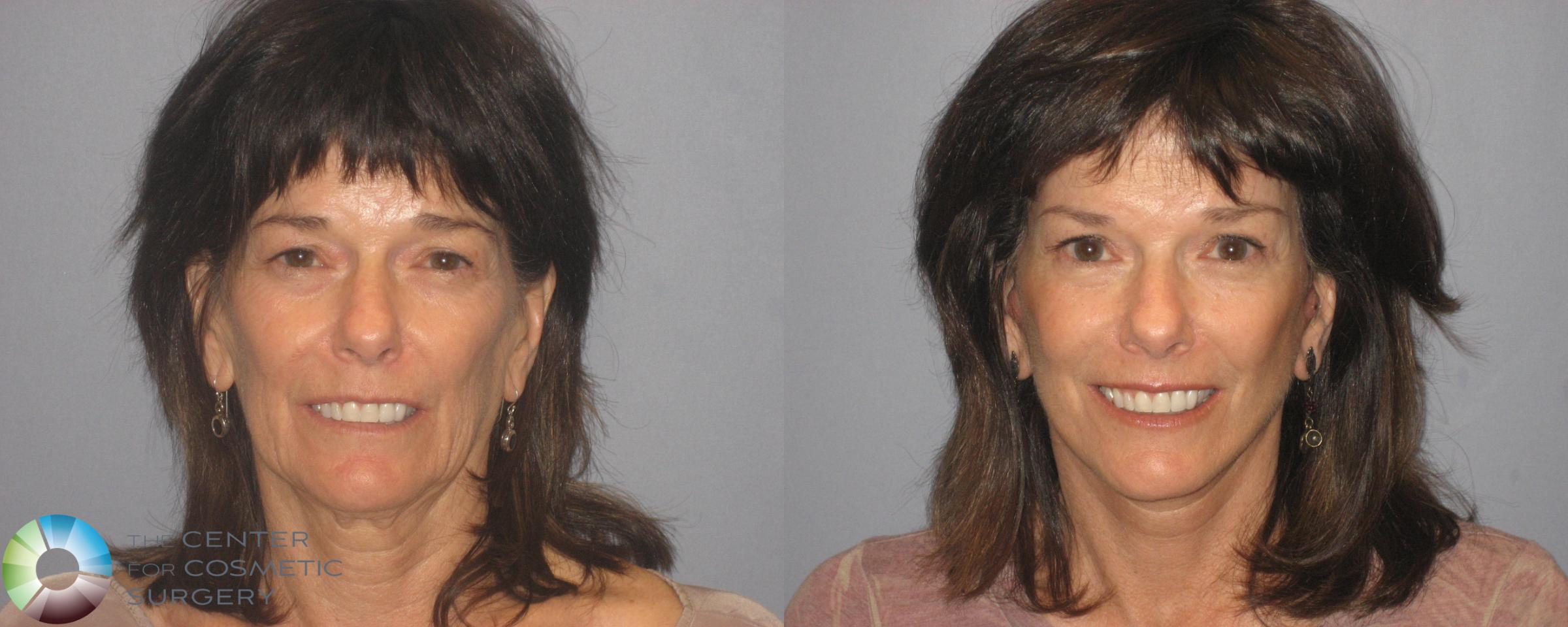 Mini Facelift Case 148 Before & After View #1 | Denver & Golden, CO | The Center for Cosmetic Surgery