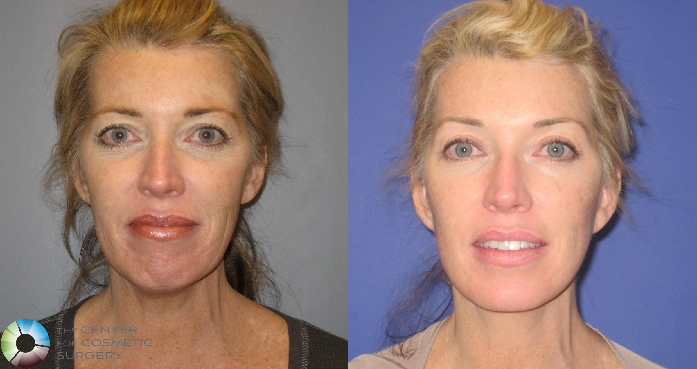 Mini Facelift Case 155 Before & After View #1 | Golden, CO | The Center for Cosmetic Surgery