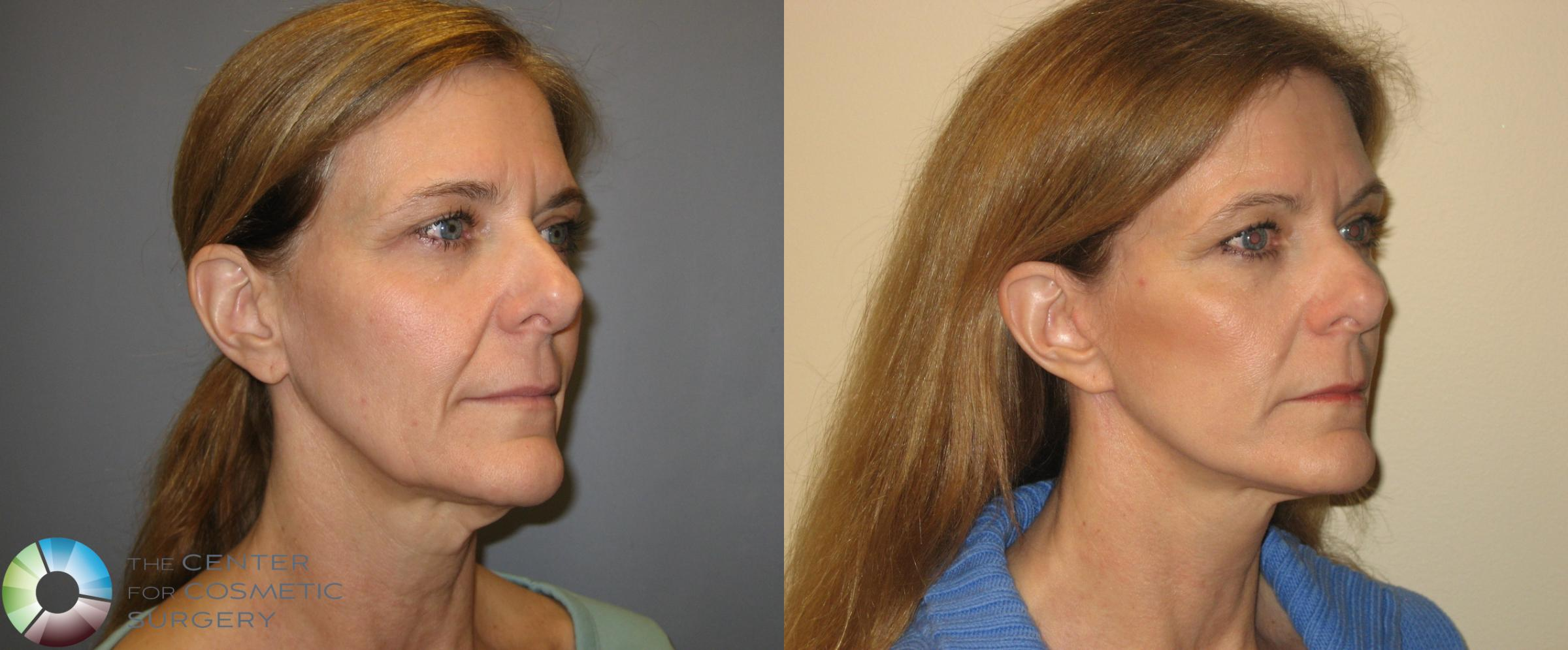Mini Facelift Case 167 Before & After View #1 | Golden, CO | The Center for Cosmetic Surgery