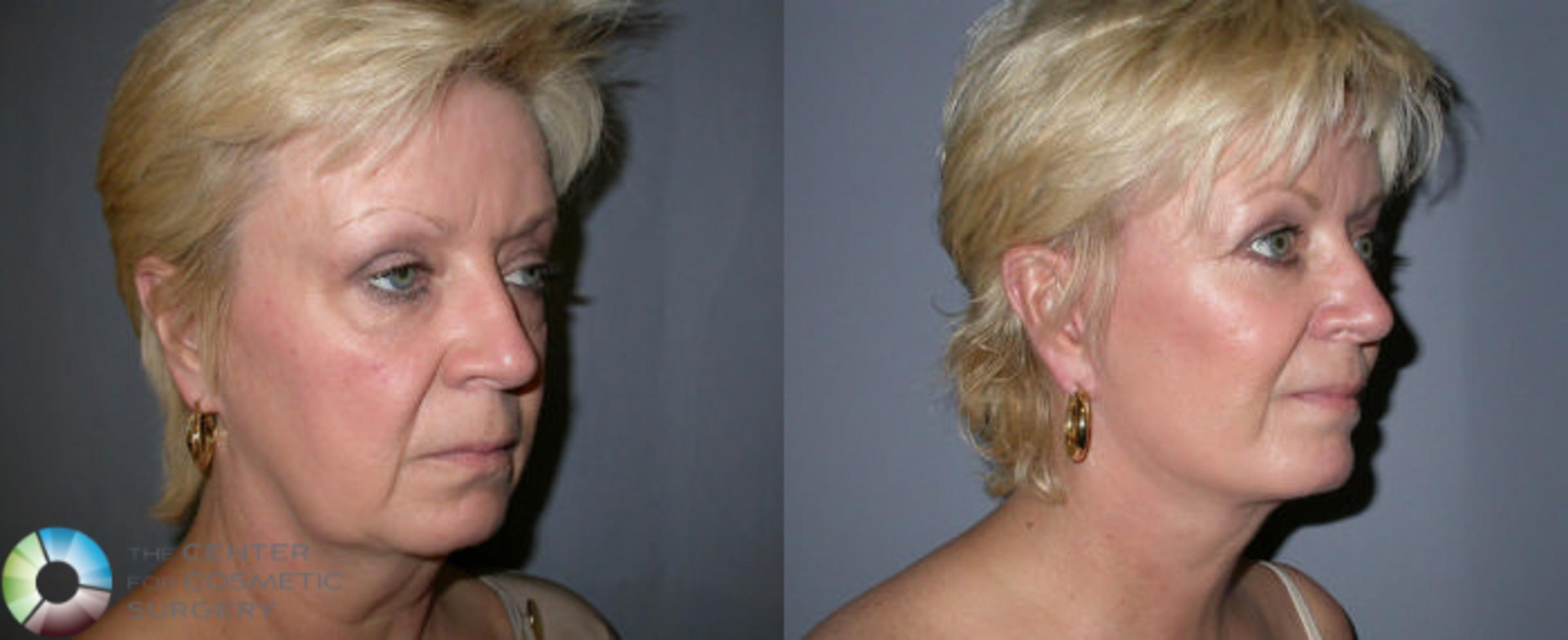 Mini Facelift Case 2 Before & After View #1 | Golden, CO | The Center for Cosmetic Surgery