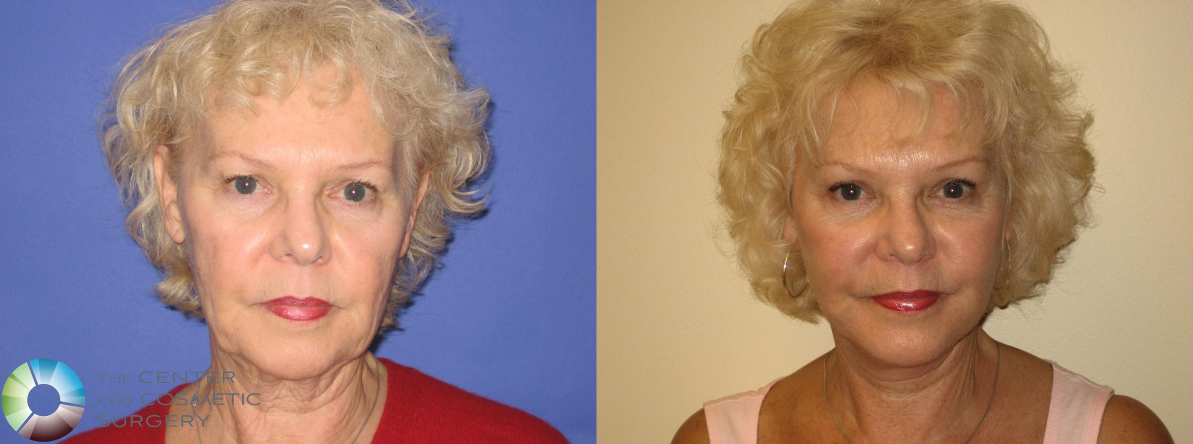 Mini Facelift Case 250 Before & After View #1 | Golden, CO | The Center for Cosmetic Surgery