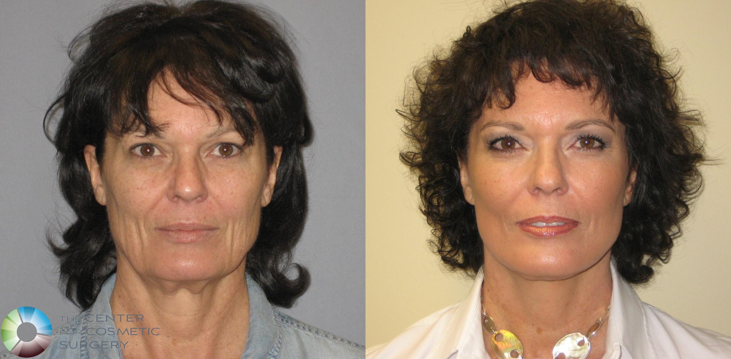 Mini Facelift Case 287 Before & After View #1 | Golden, CO | The Center for Cosmetic Surgery