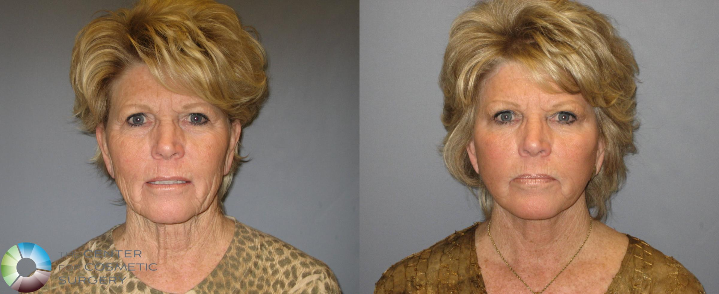 Mini Facelift Case 334 Before & After View #1 | Golden, CO | The Center for Cosmetic Surgery