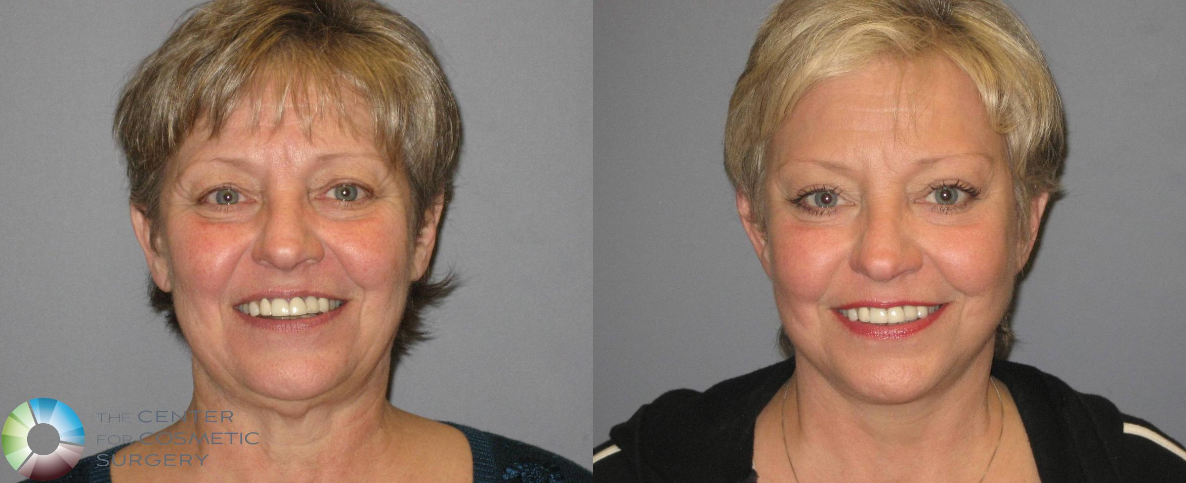 Mini Facelift Case 342 Before & After View #1 | Golden, CO | The Center for Cosmetic Surgery